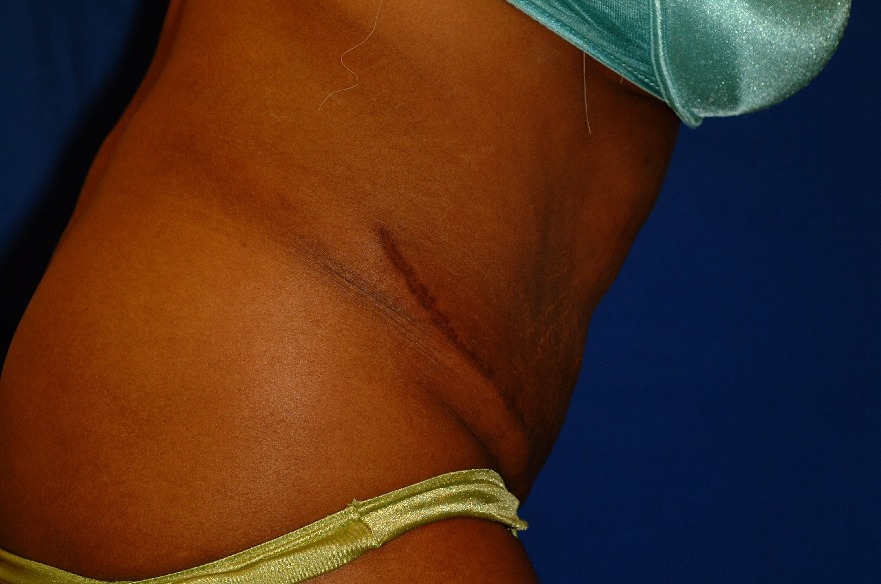 Newport Beach Tummy Tuck After Side View Flexing