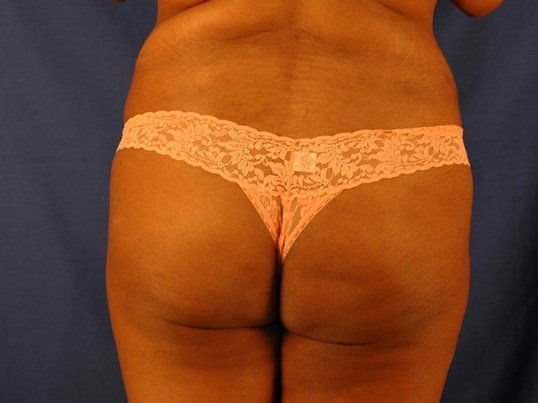 Newport Beach Buttocks Aug Before Back View