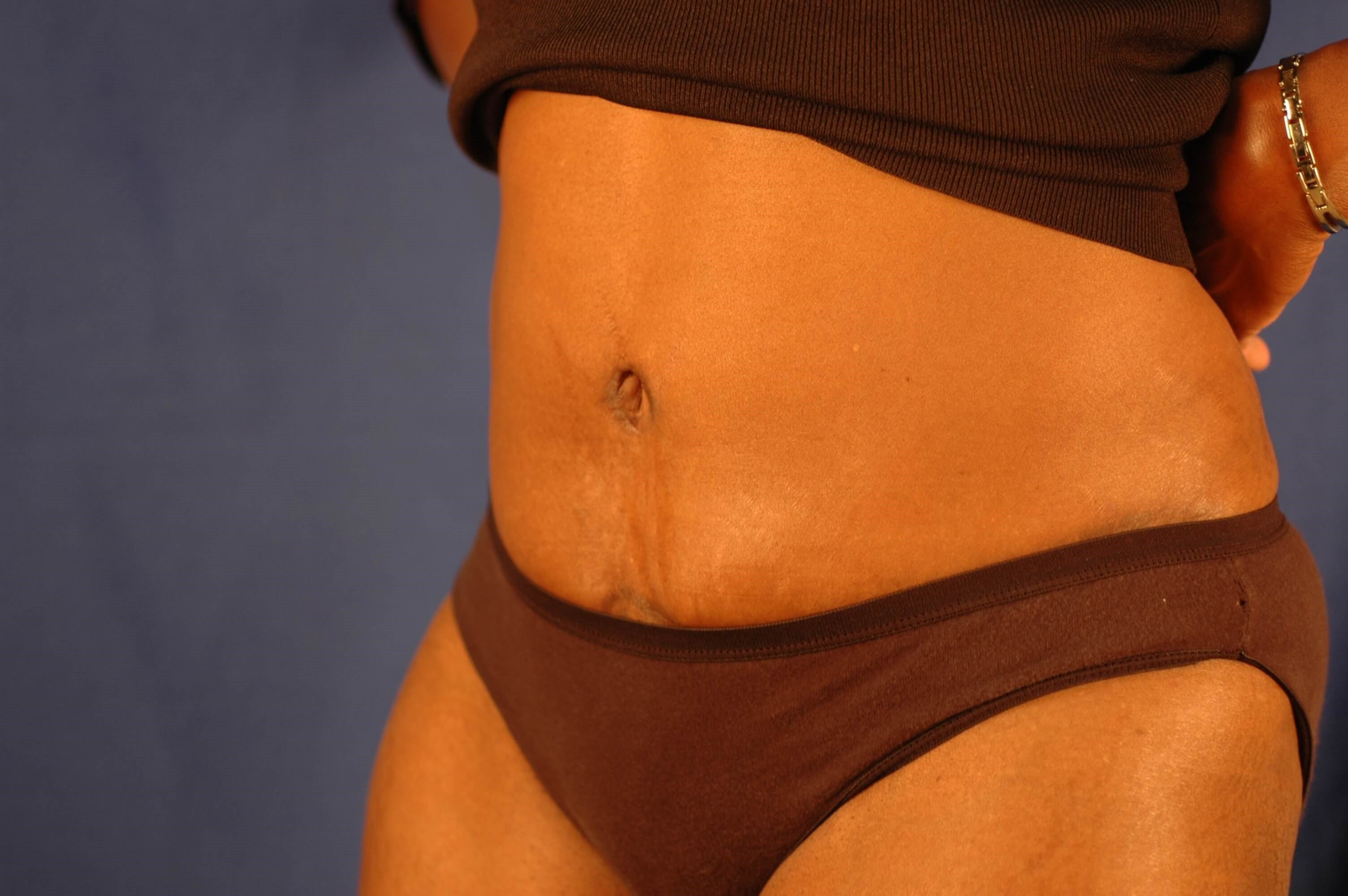 Newport Beach Tummy Tuck Oblique View After