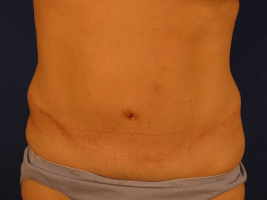 Newport Beach Tummy Tuck After Front View