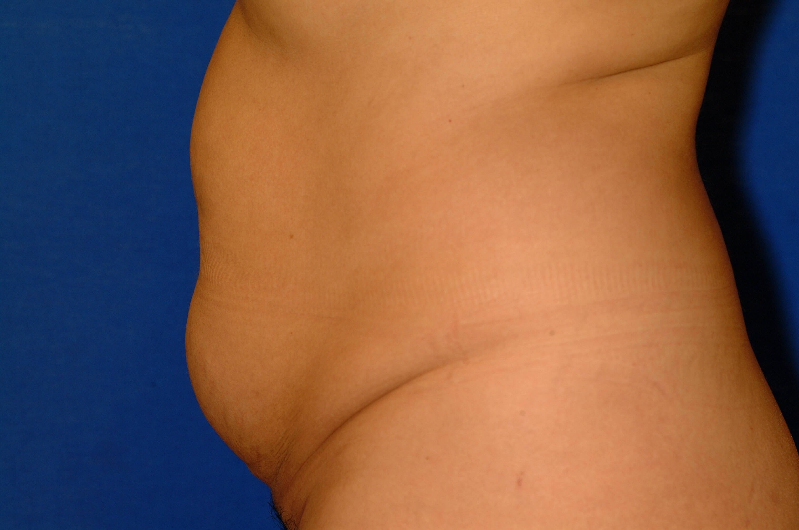 Newport Beach Tummy Tuck Side View Before