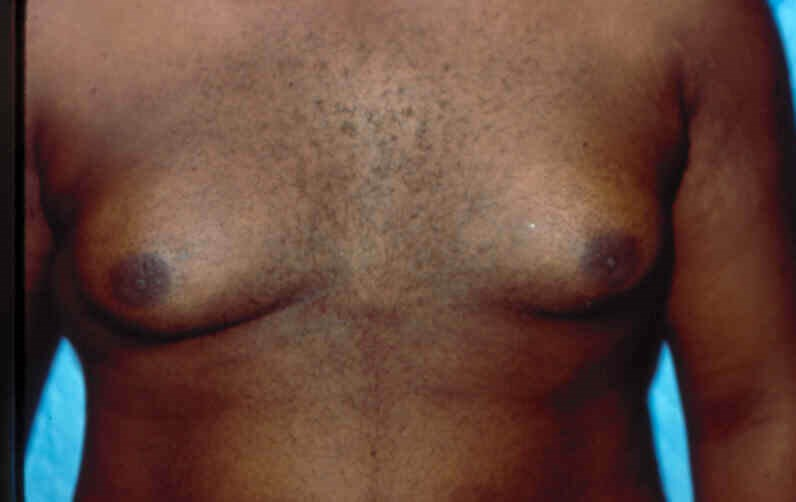 Newport Beach Gynecomastia Before Front View