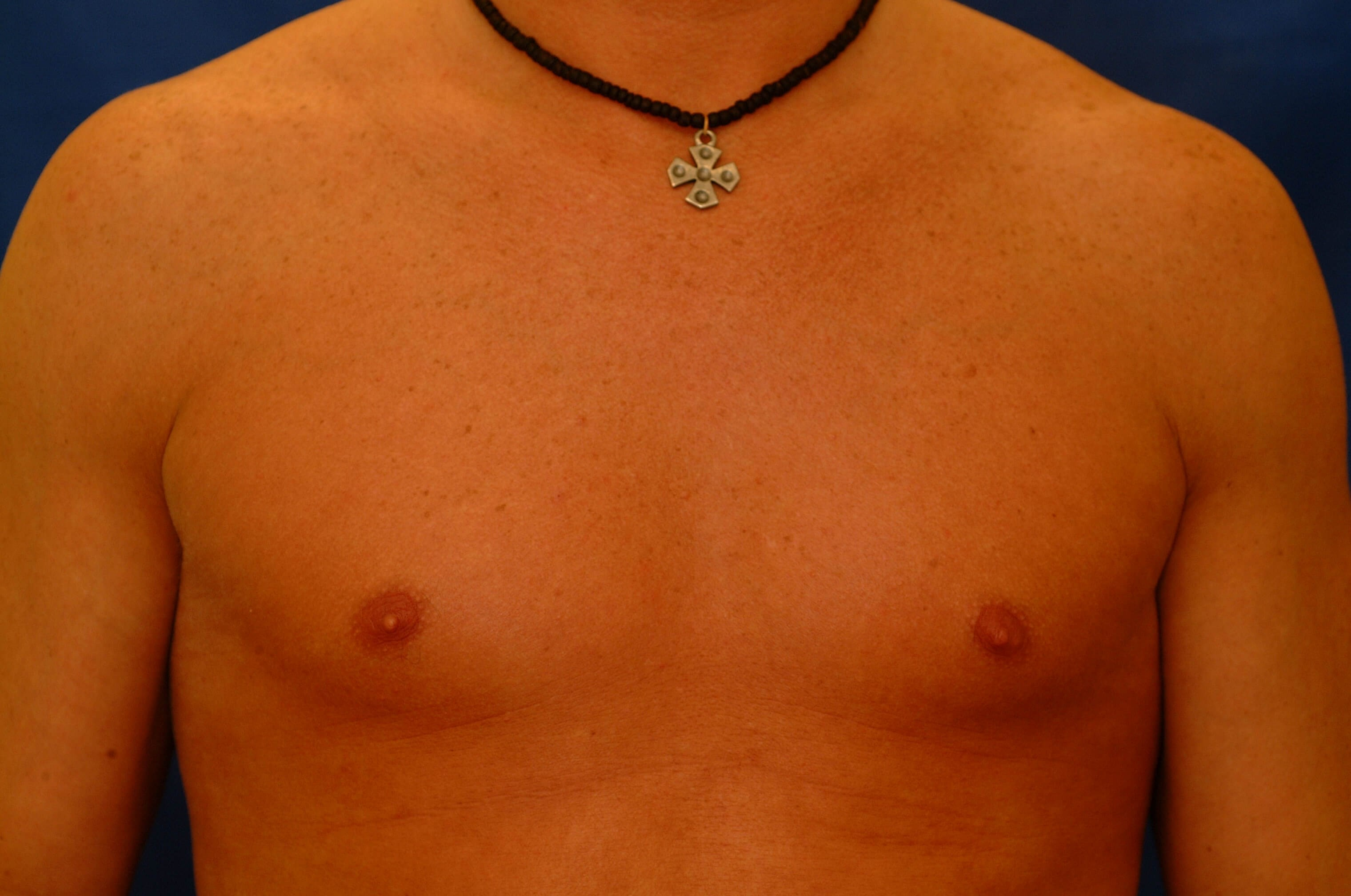 Newport Beach Pectoral Implant Before Front View