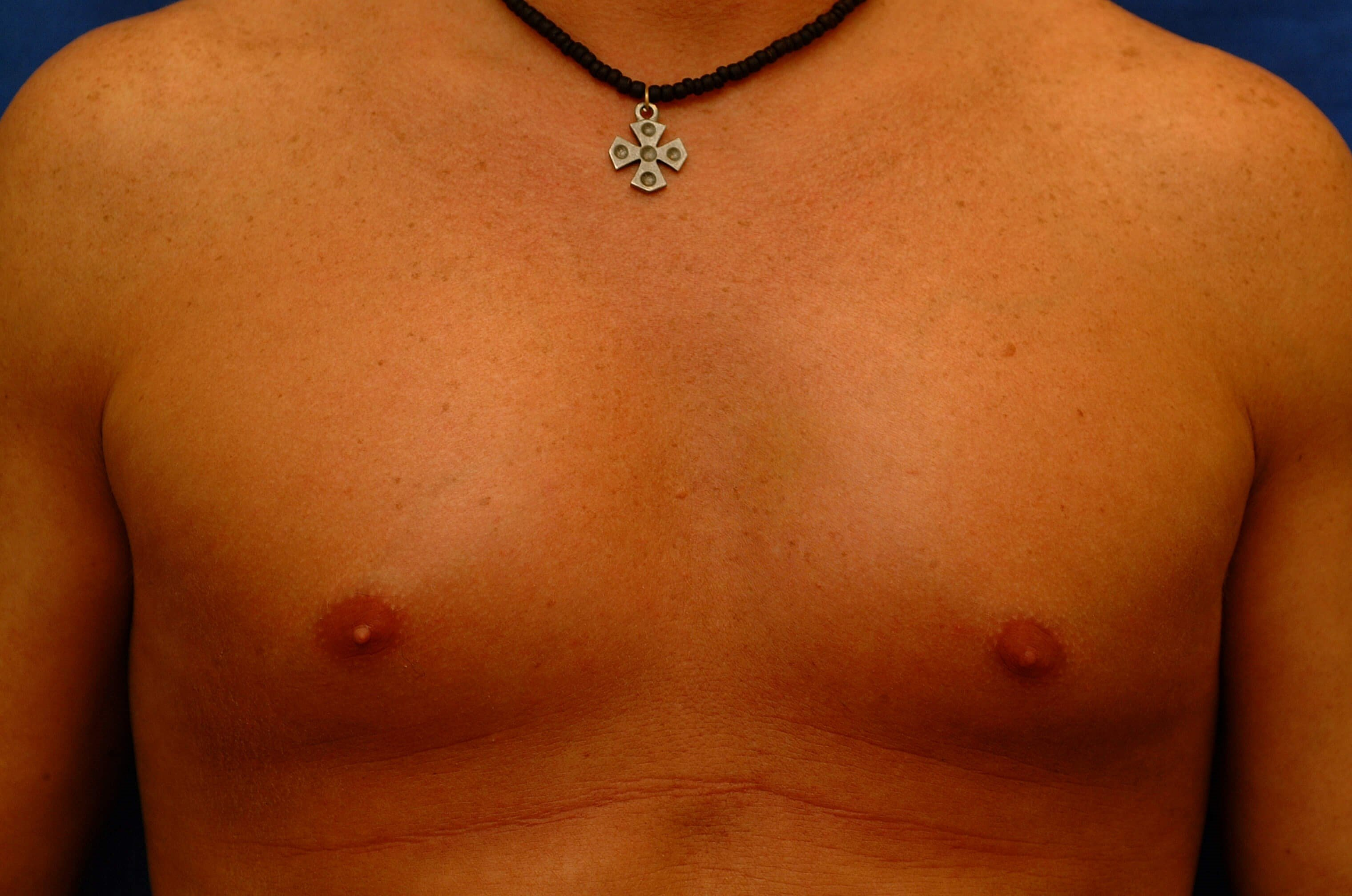 Newport Beach Pectoral Implant After Front View