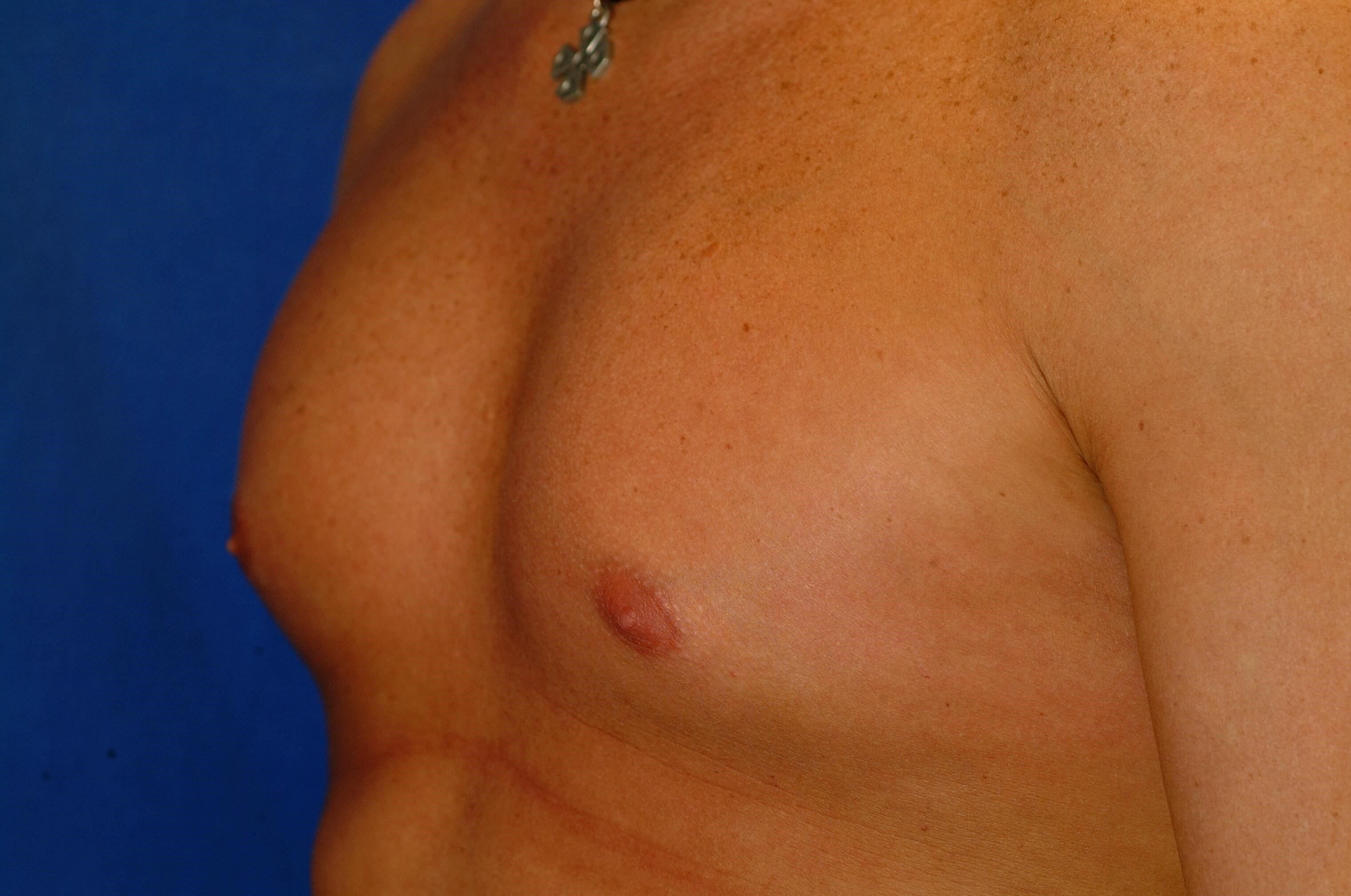 Newport Beach Pectoral Implant Oblique View After