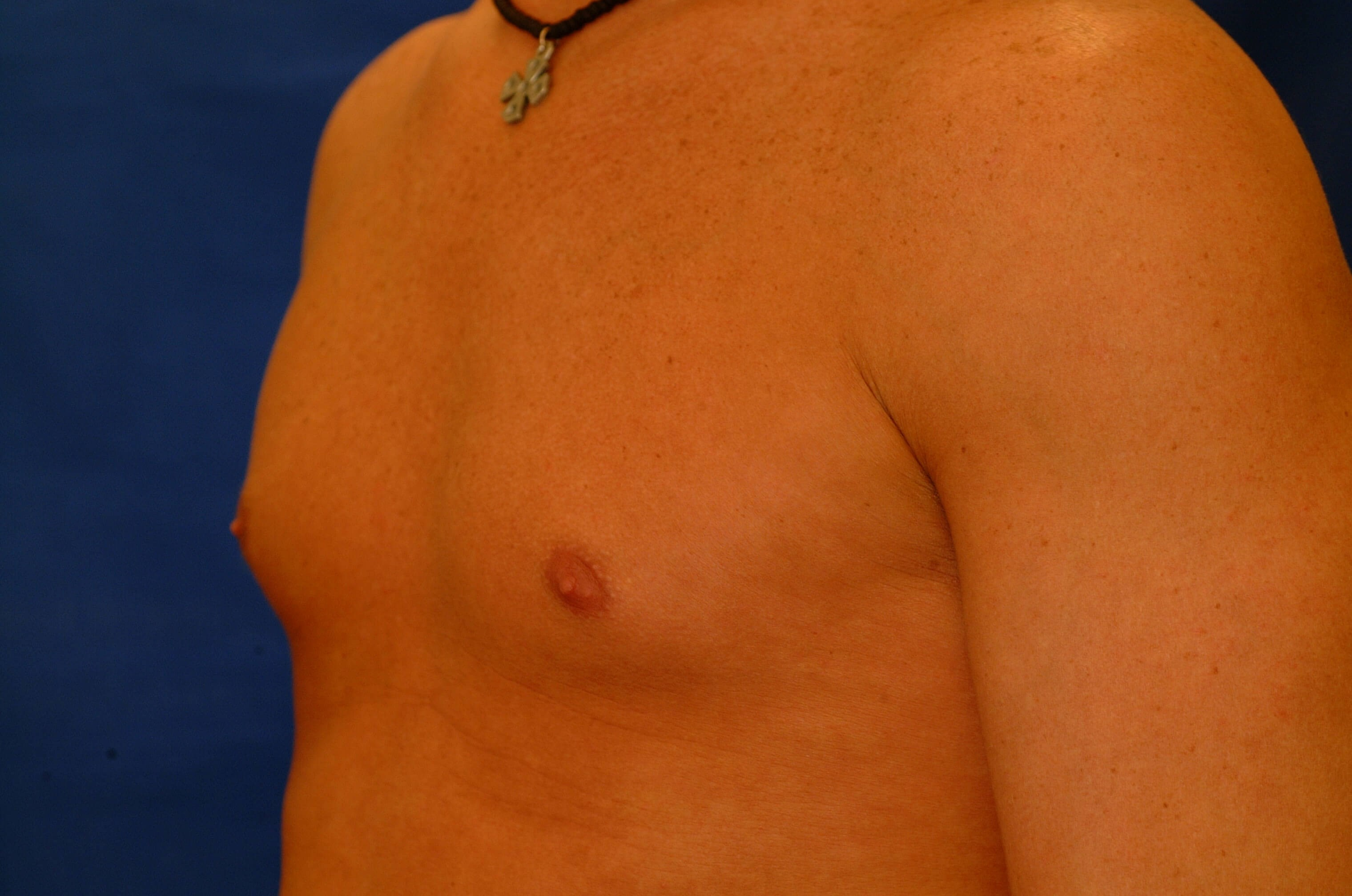 Newport Beach Pectoral Implant Oblique View Before