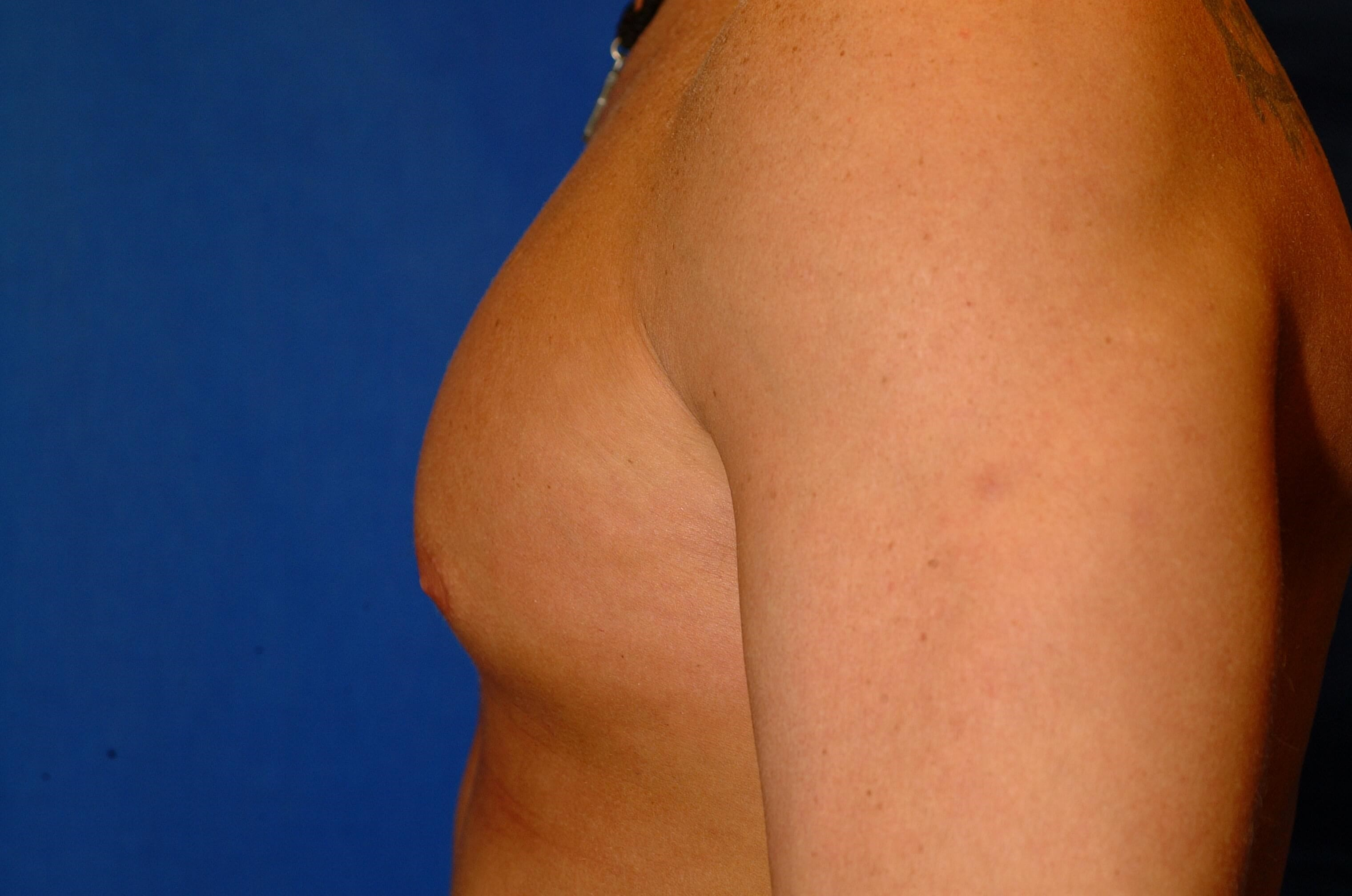 Newport Beach Pectoral Implant Side View After