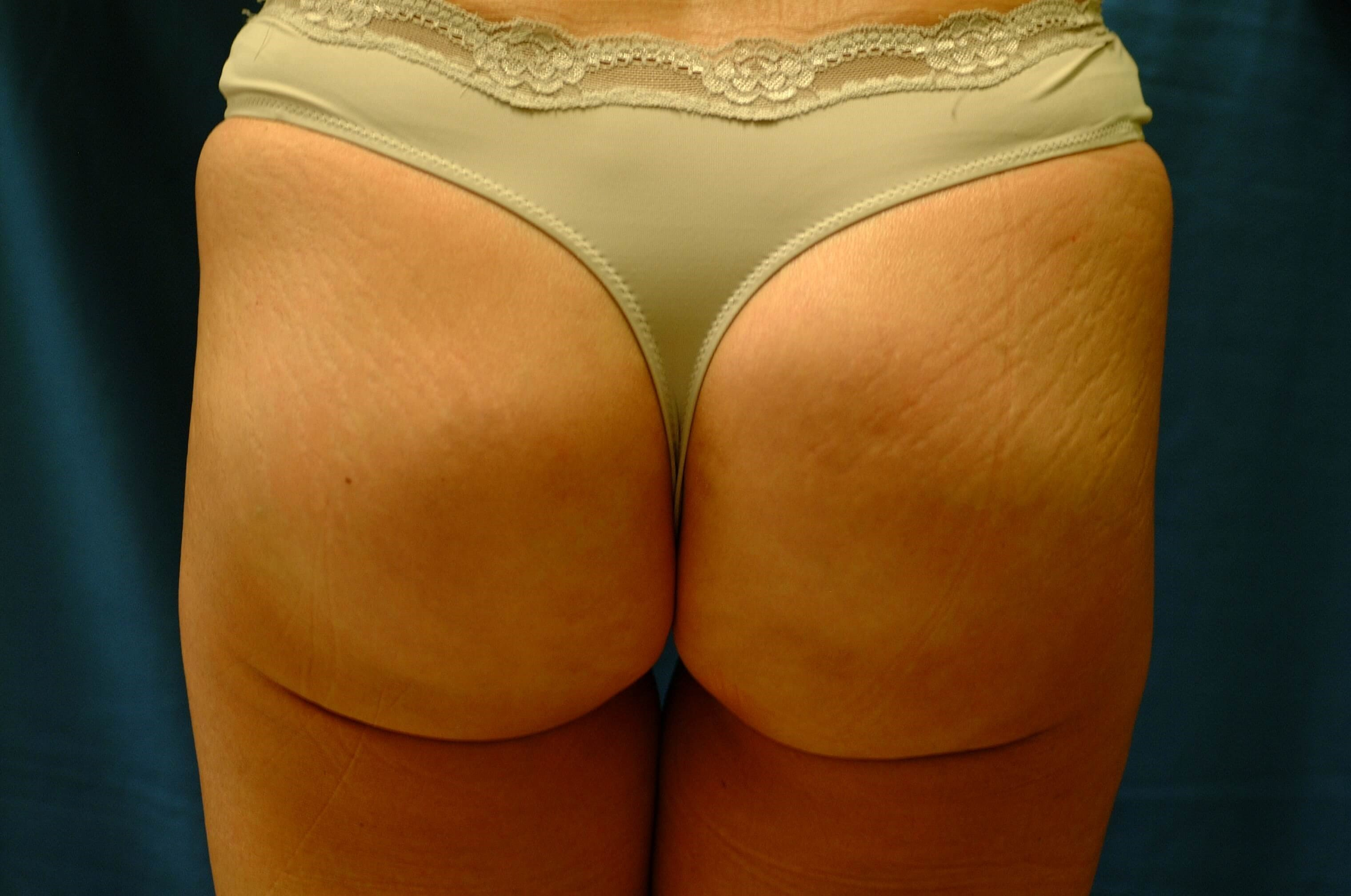 Newport Beach Buttocks Aug After Back View