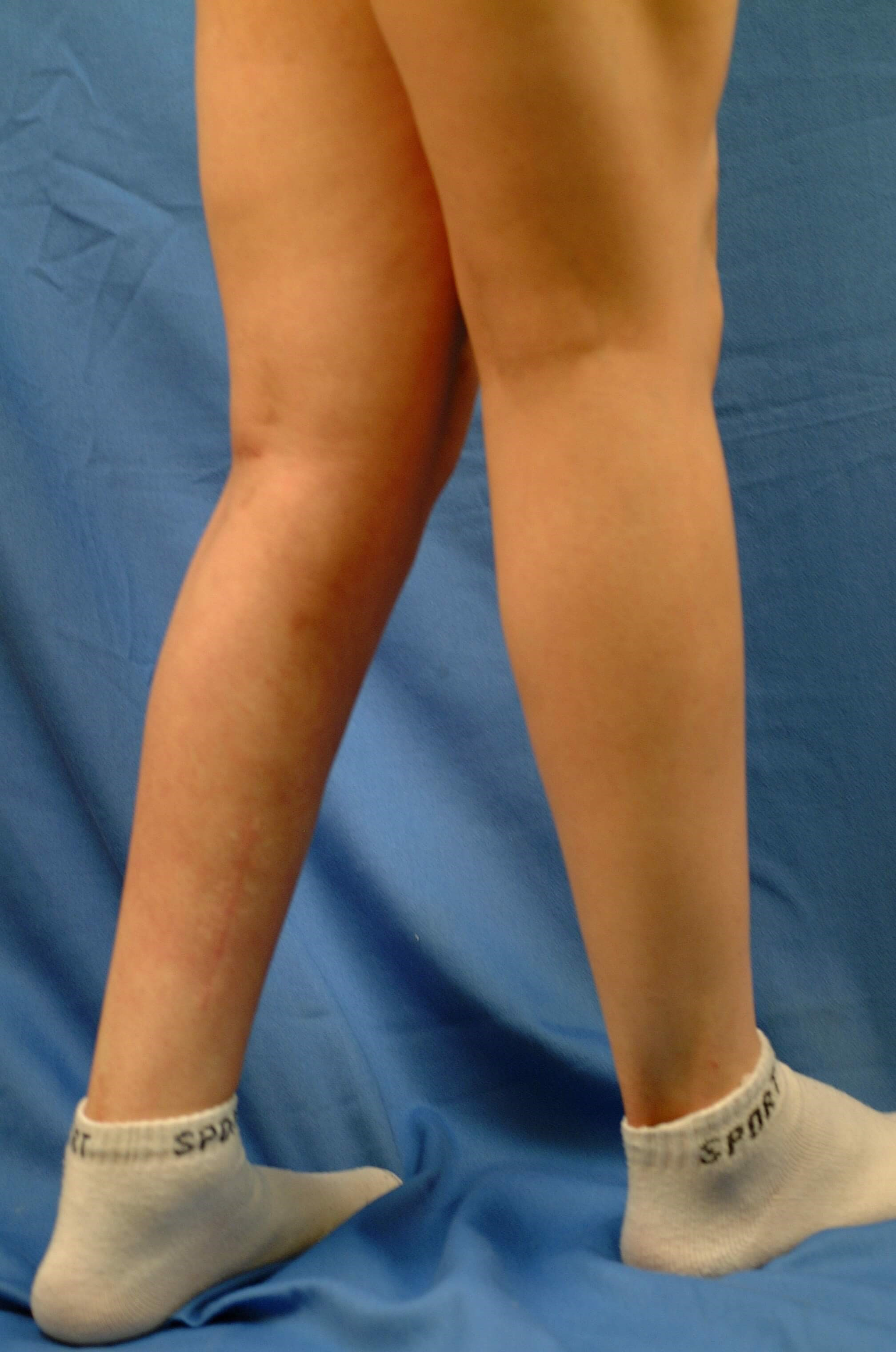 Newport Beach Calf Implants Oblique View After