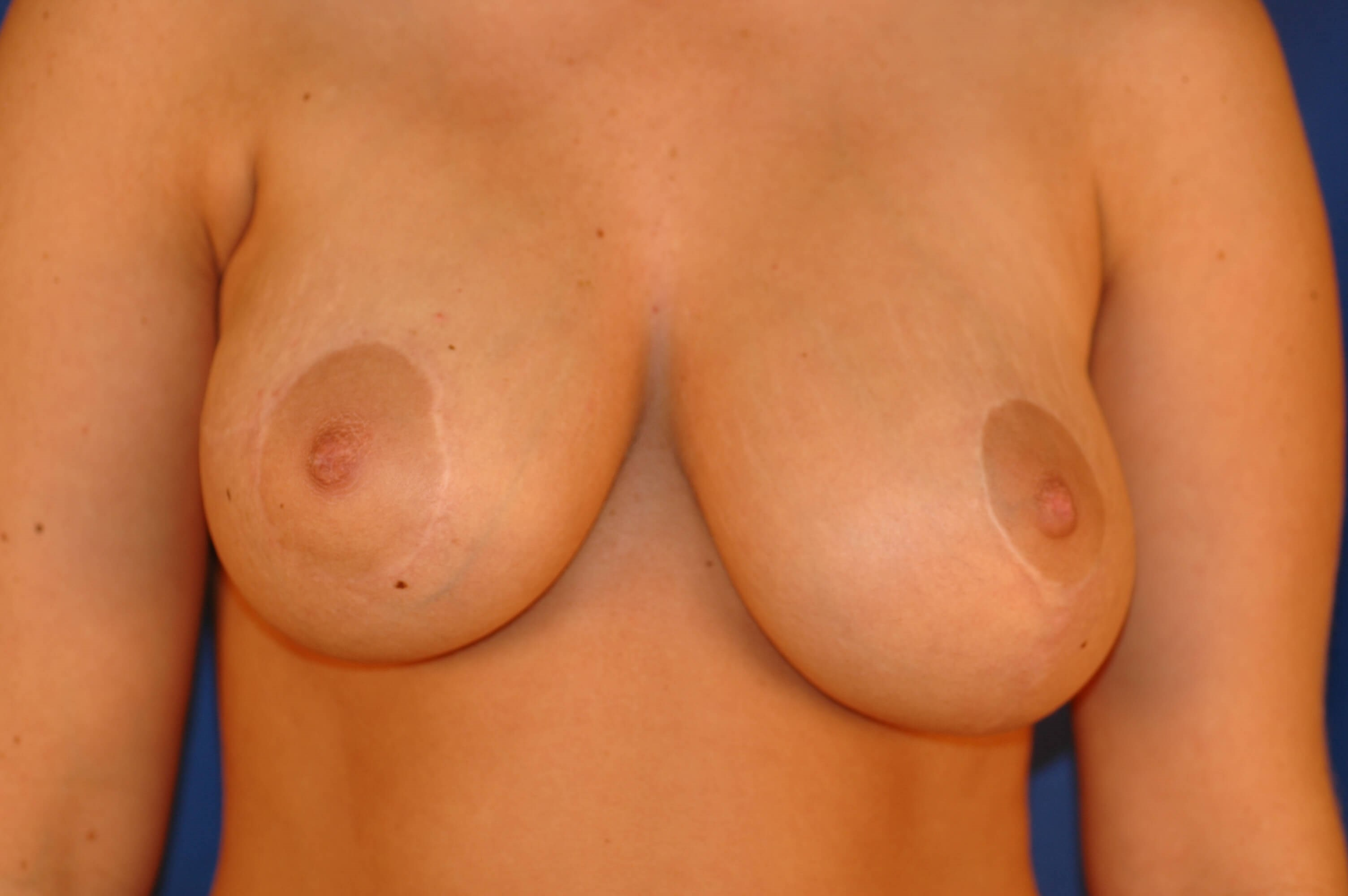 Newport Beach Breast Lift After Front View