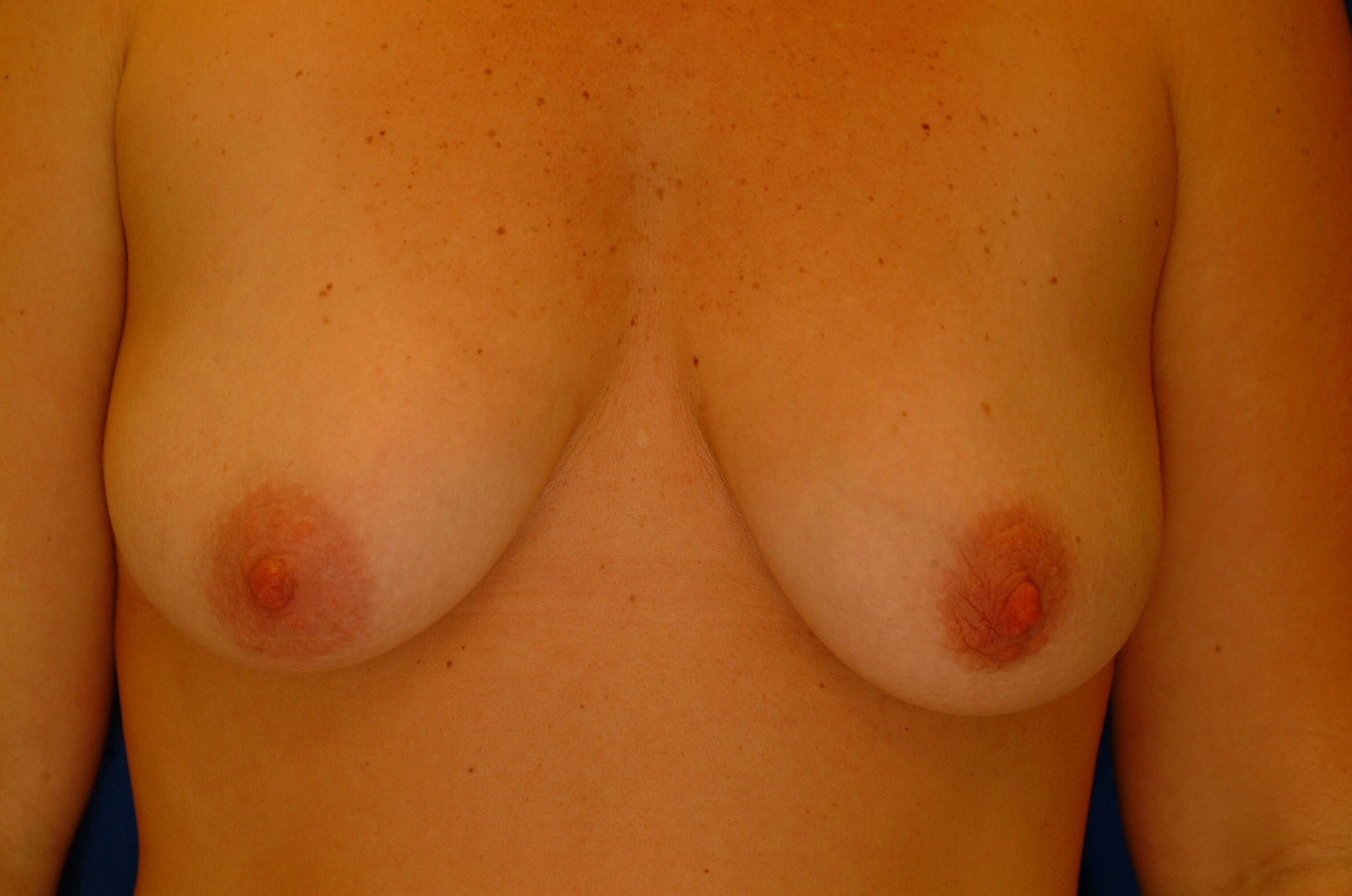 Newport Beach Breast Lift &Aug Before Front View