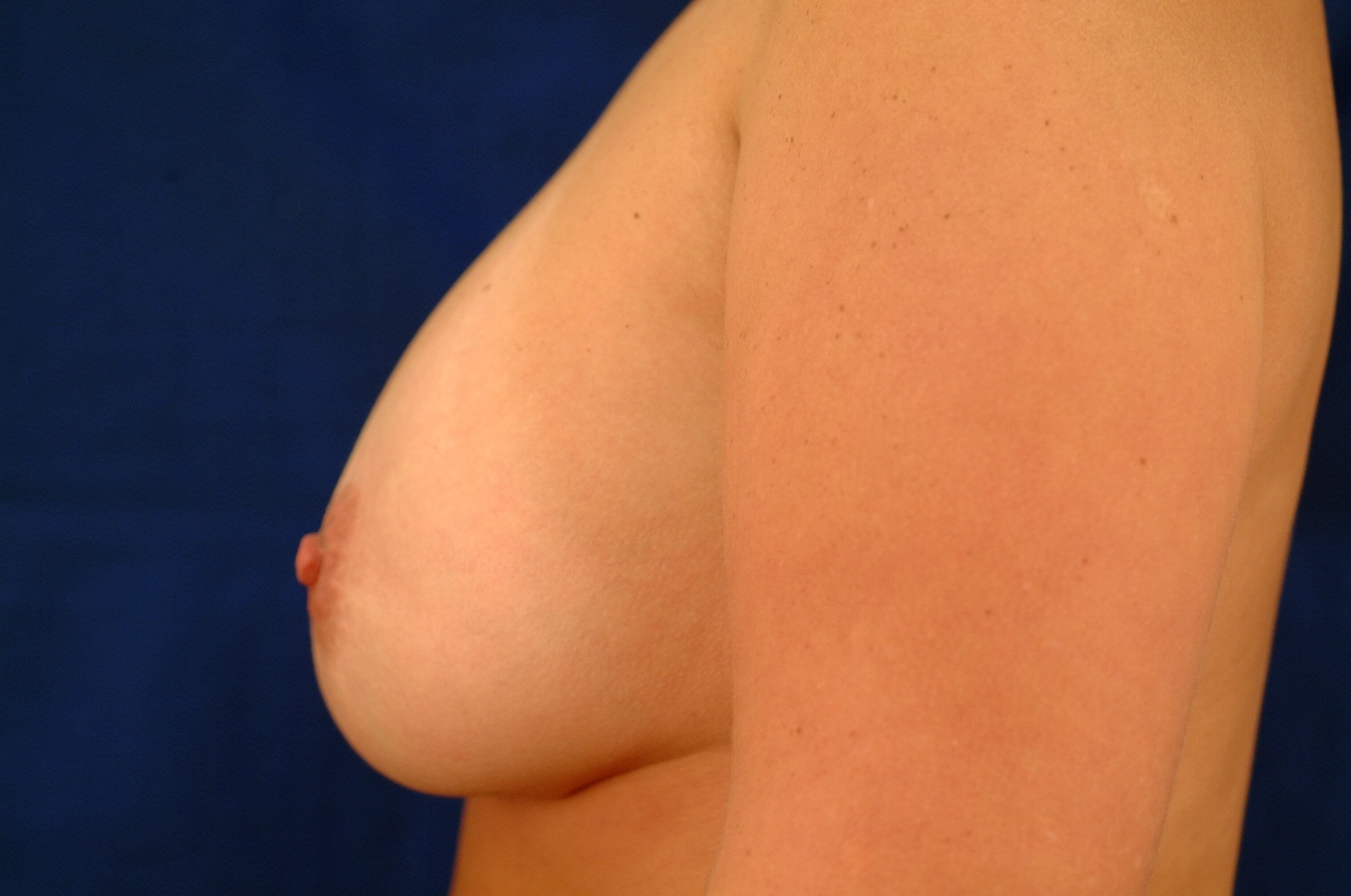 Newport Beach Breast Lift &Aug Side View After