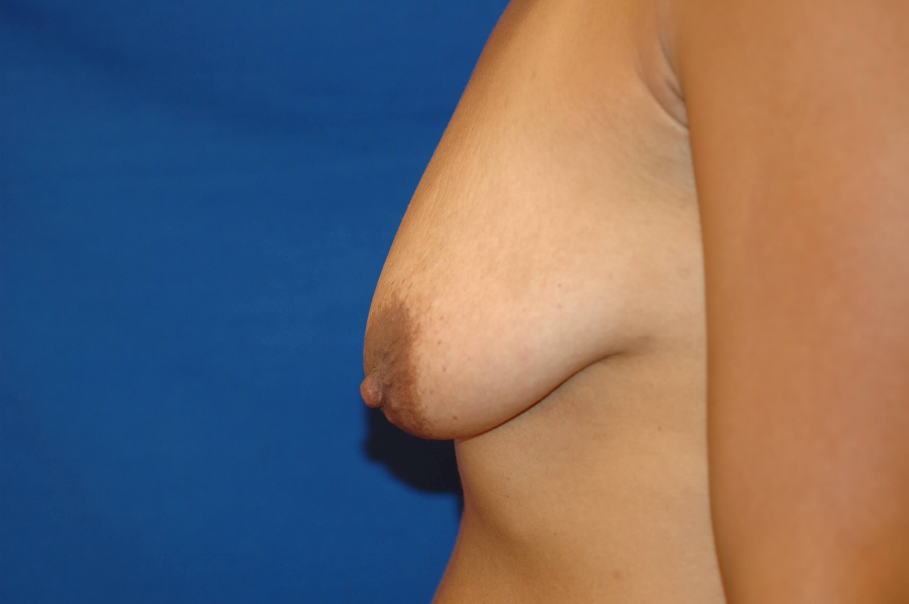 Newport Beach Breast Lift &Aug Before