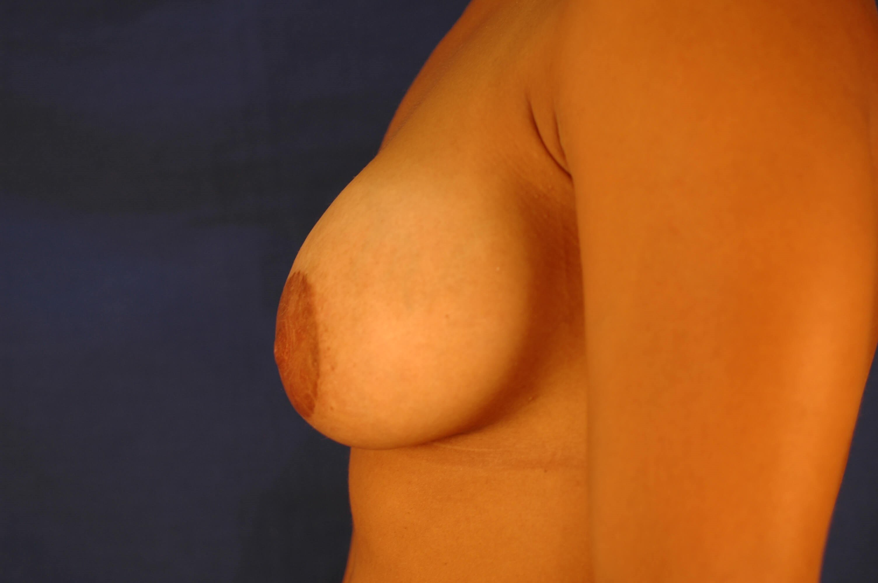 Newport Beach Breast Lift &Aug After