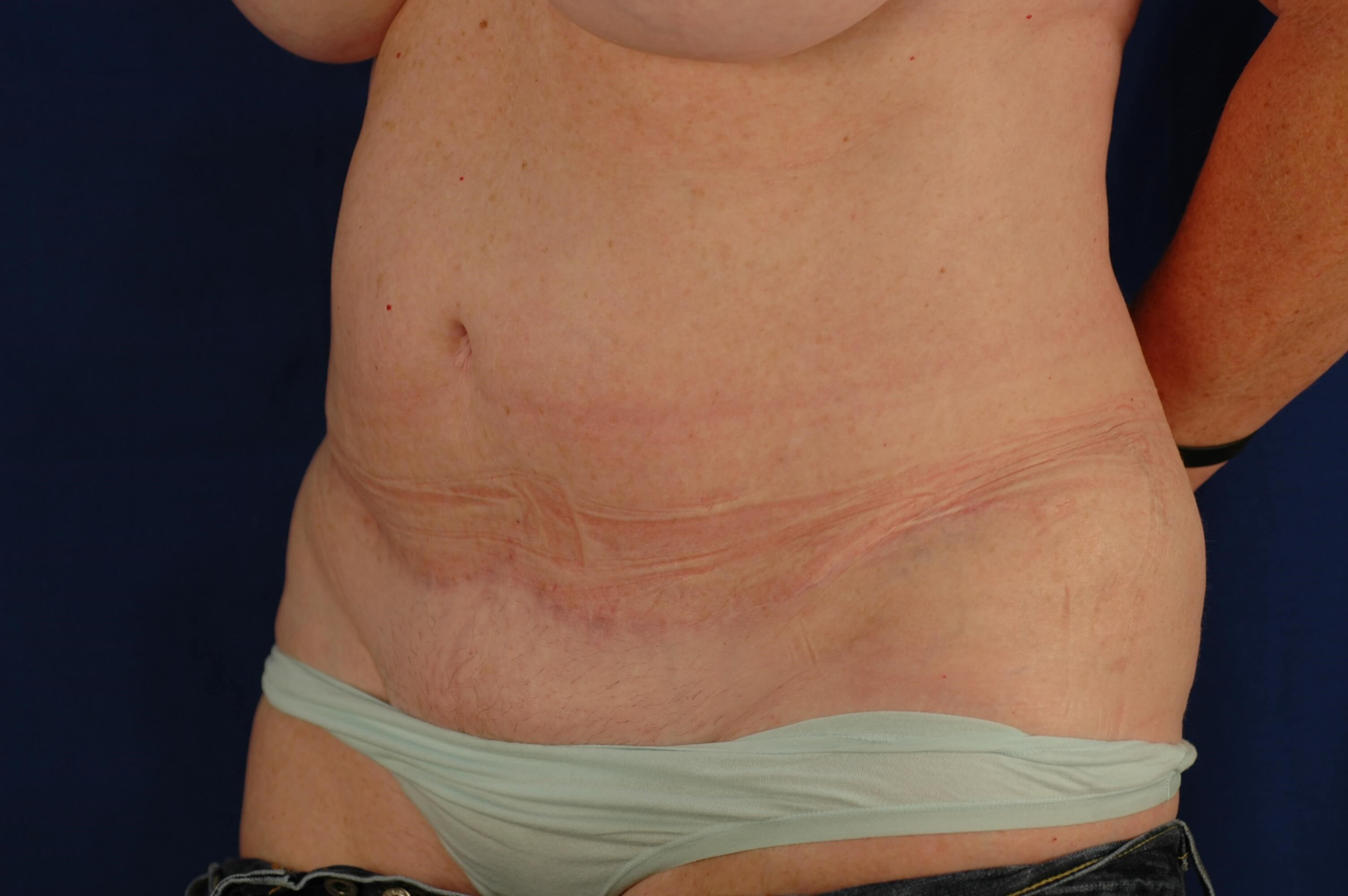 Newport Beach Mommy Makeover Oblique View After