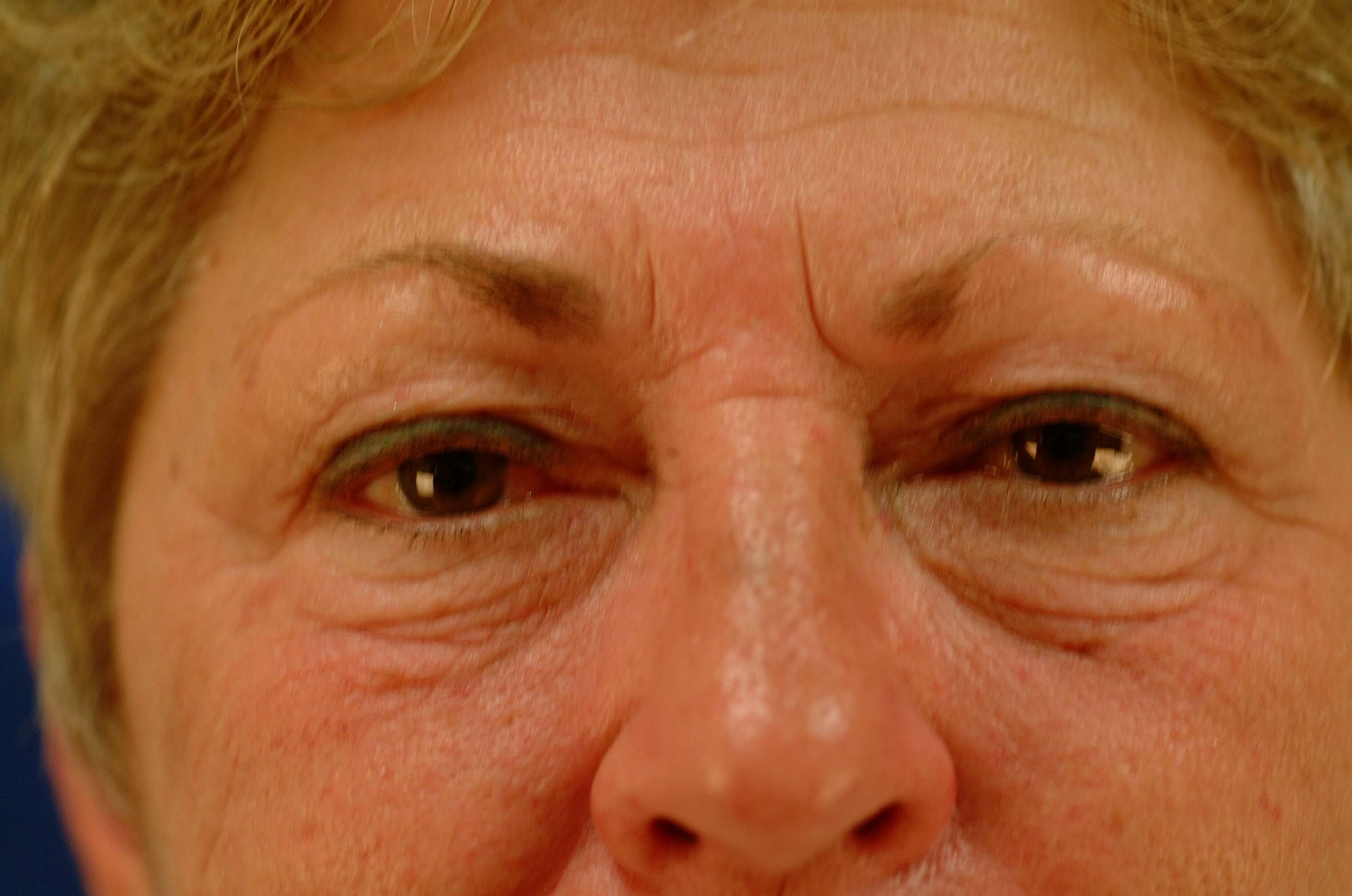 Newport Facial Rejuvenation Before Front View