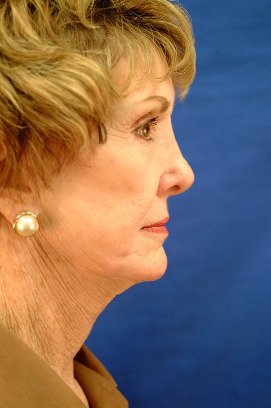 Newport Facial Rejuvenation Side View Bent Before