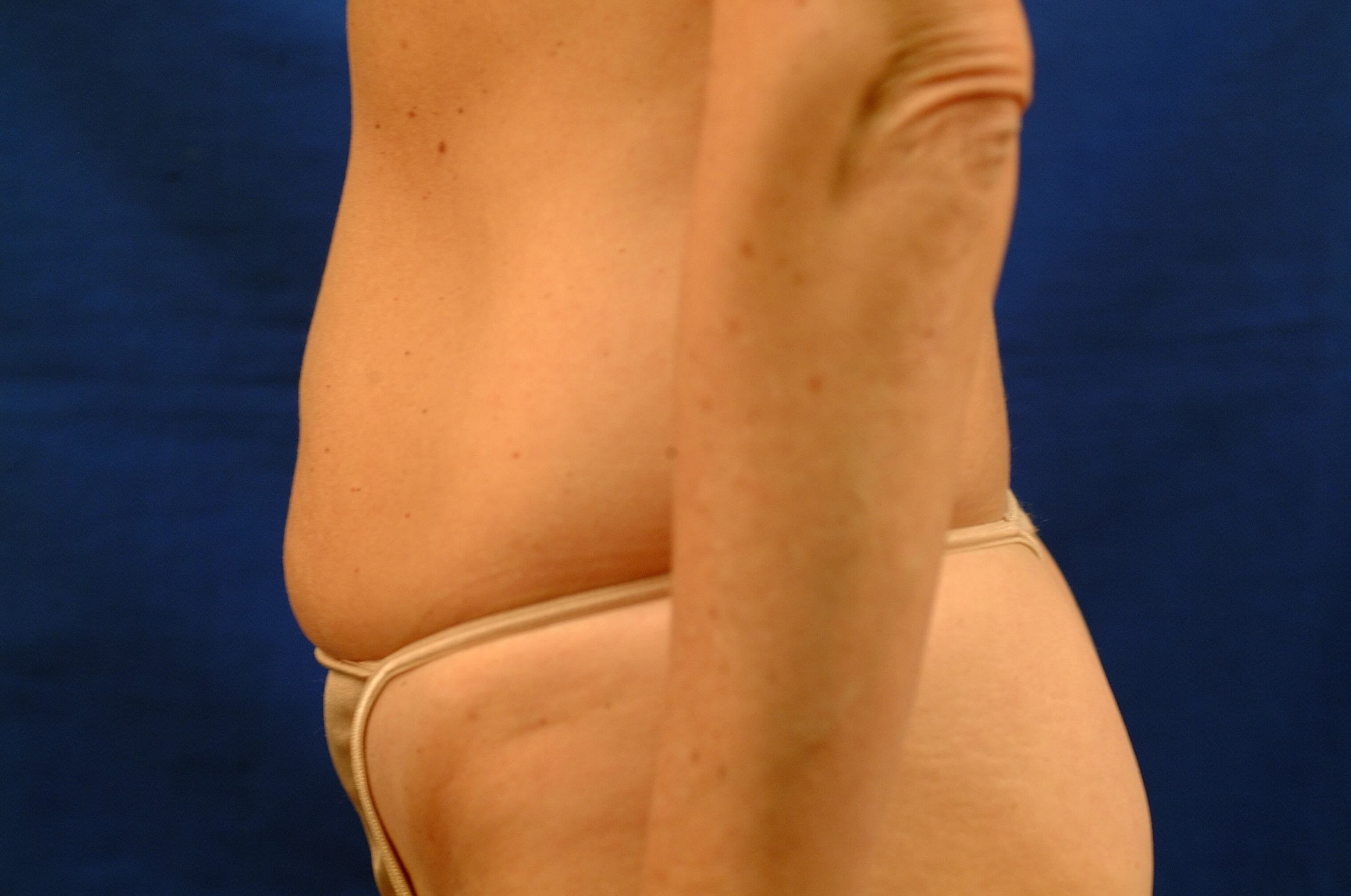 Newport Beach Liposuction Side View Before