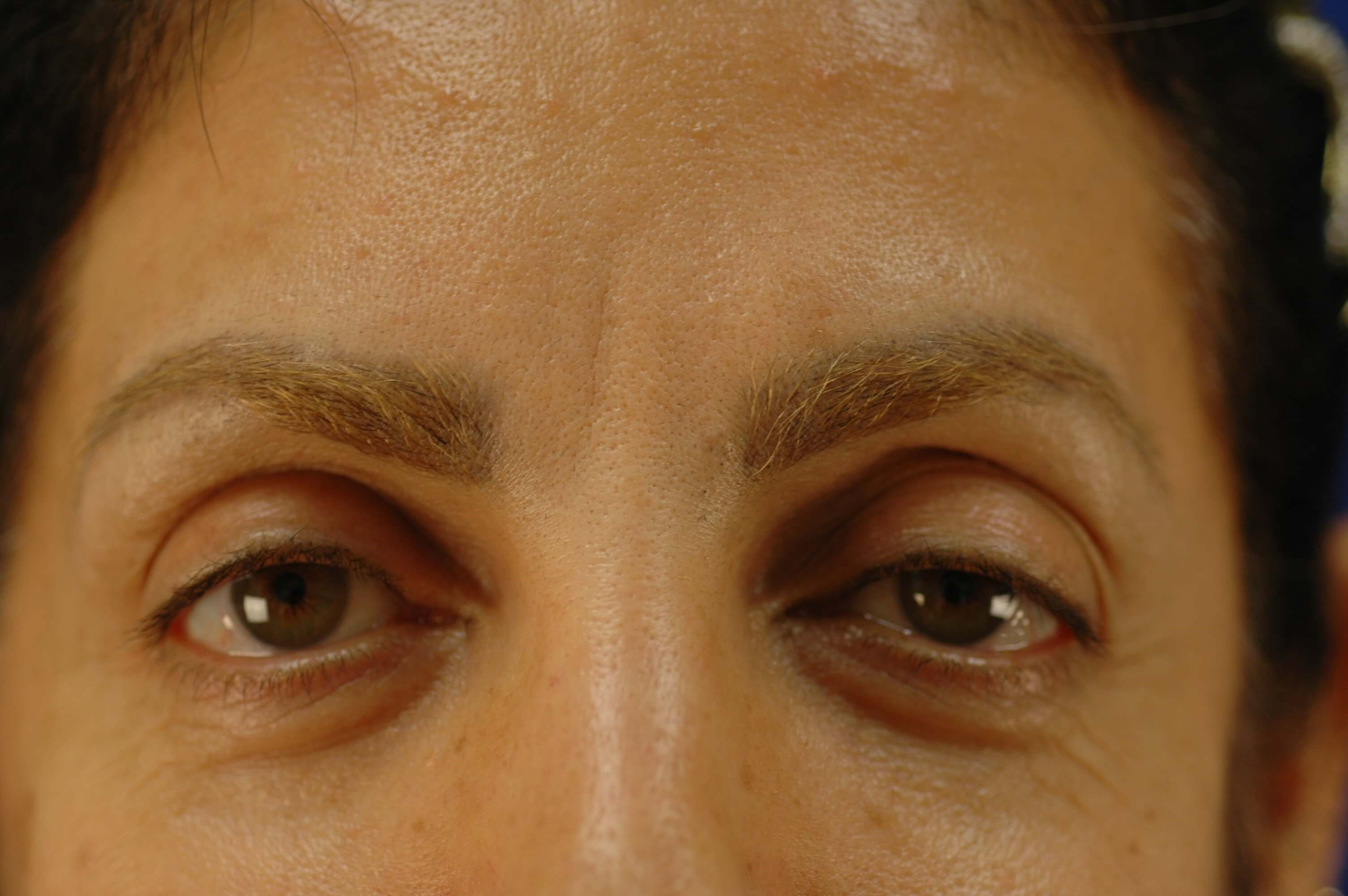 Newport Beach Brow/Nose After Front View