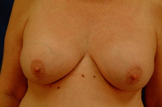 Newport Breast Implant Exhange Front View Before