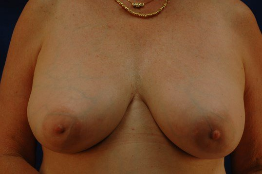 Newport Breast Implant Exhange Front View After