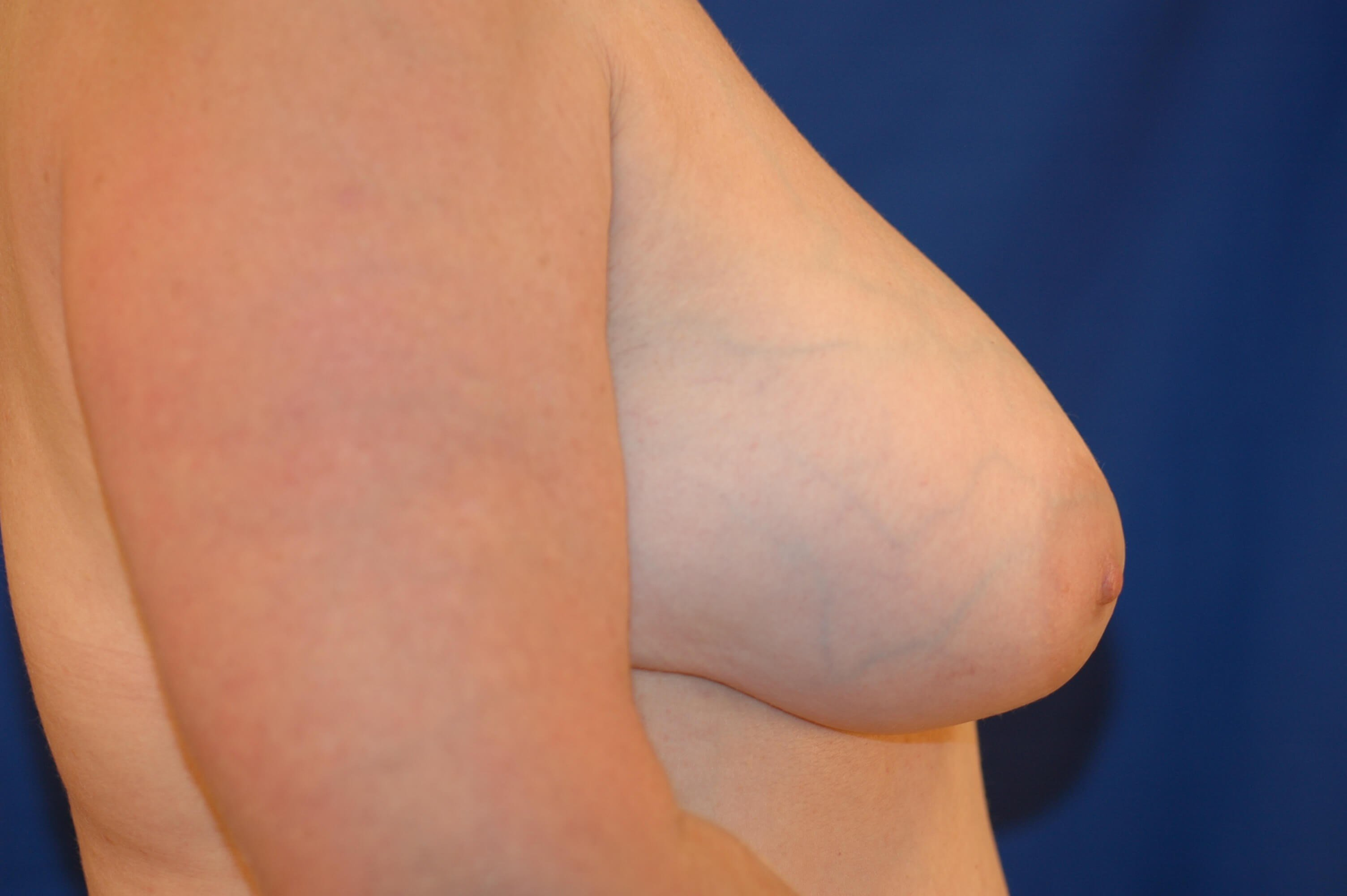 Newport Breast Implant Exhange Side View After