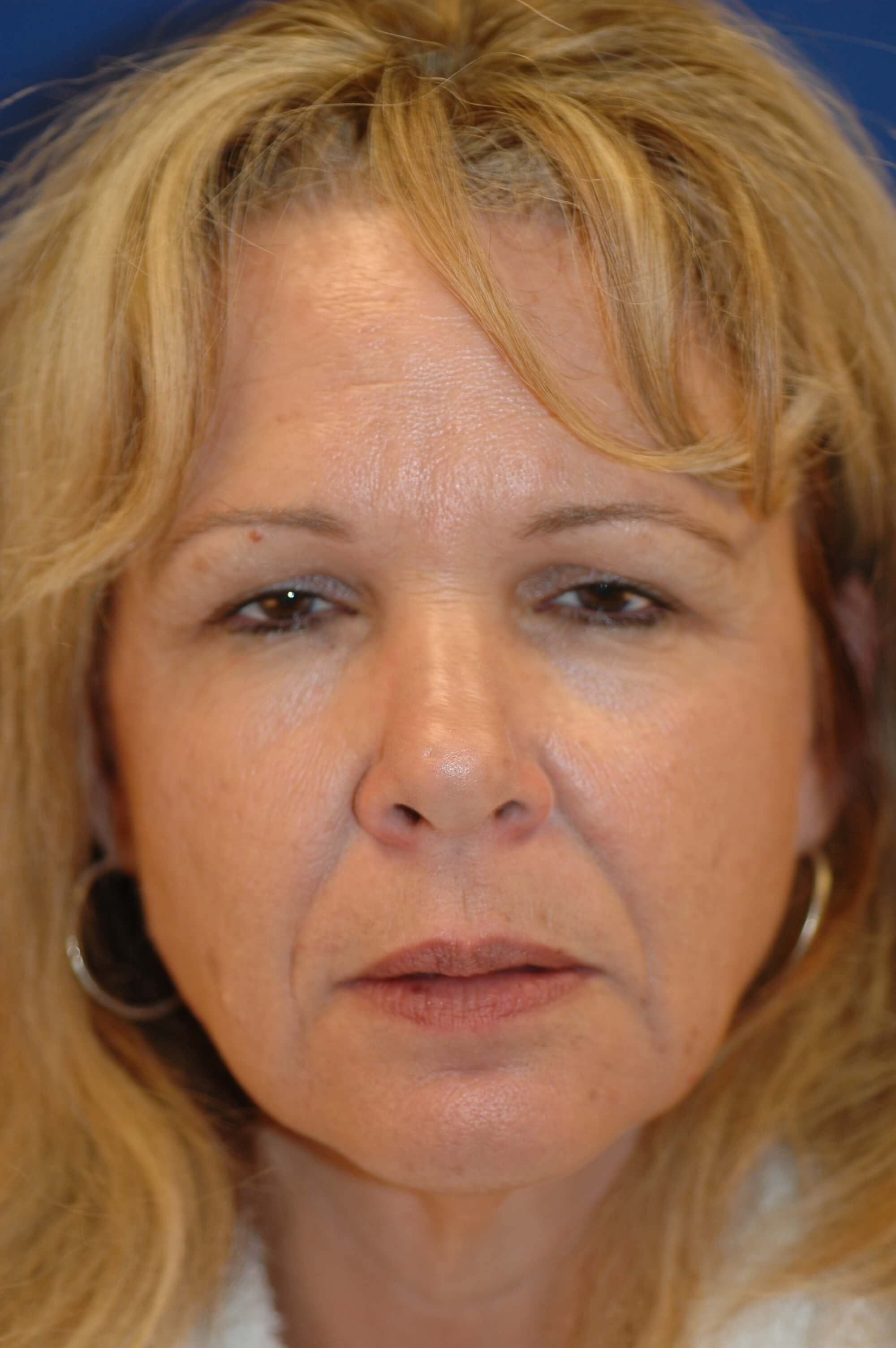 Newport Ptosis Repair and Brow Front View Before