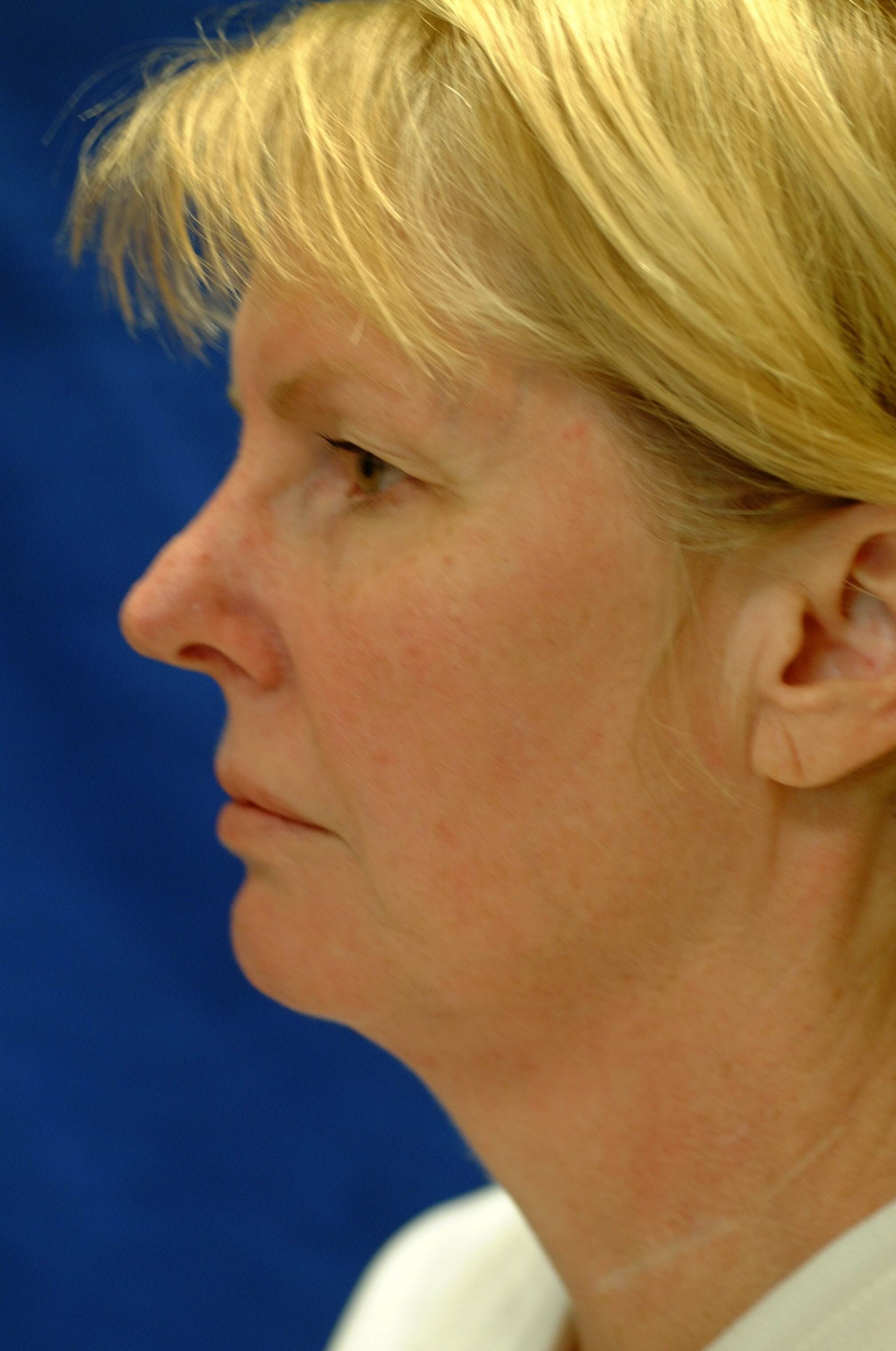 Newport Facelift/Rhinoplasty Side View Before