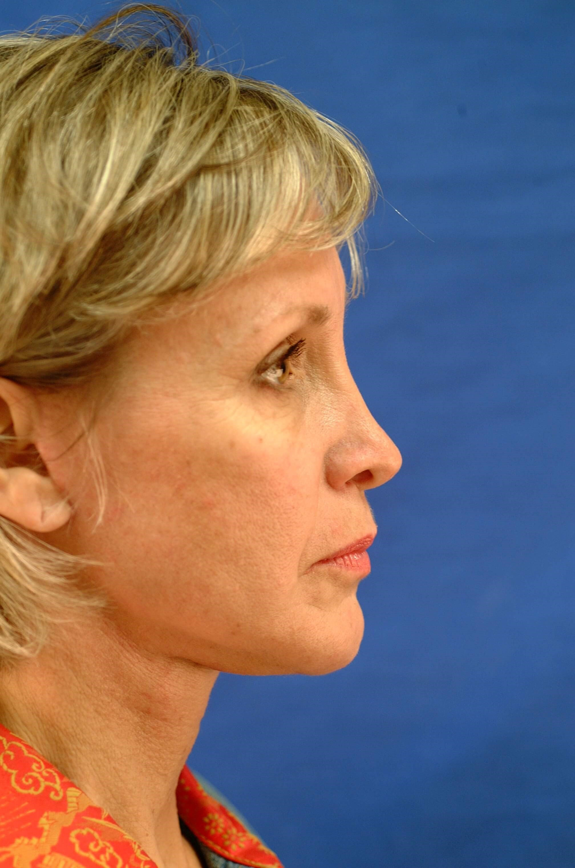 Newport Facial Rejuvenation Side View After