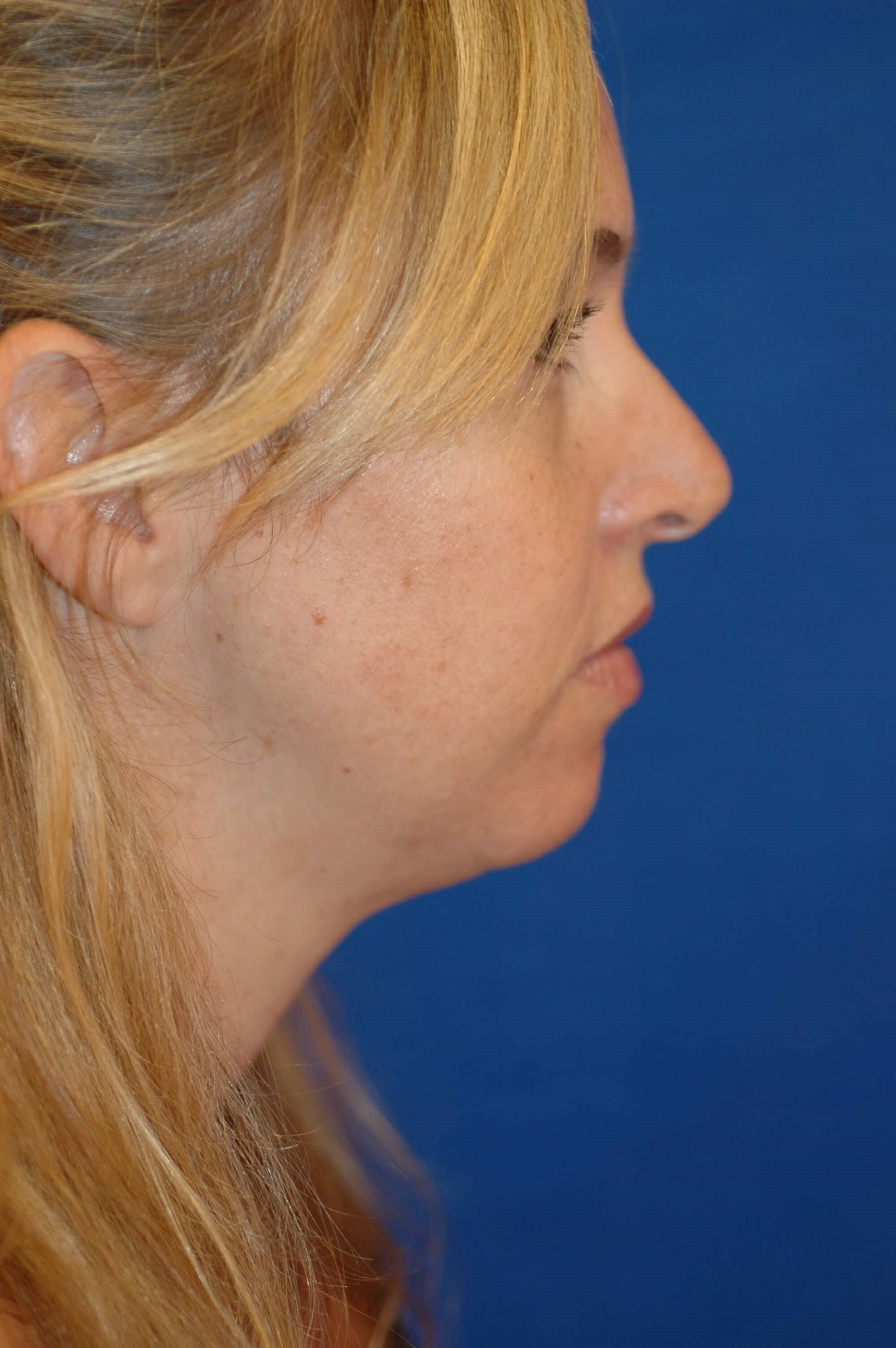 Newport Beach Chin Implant Side View Before