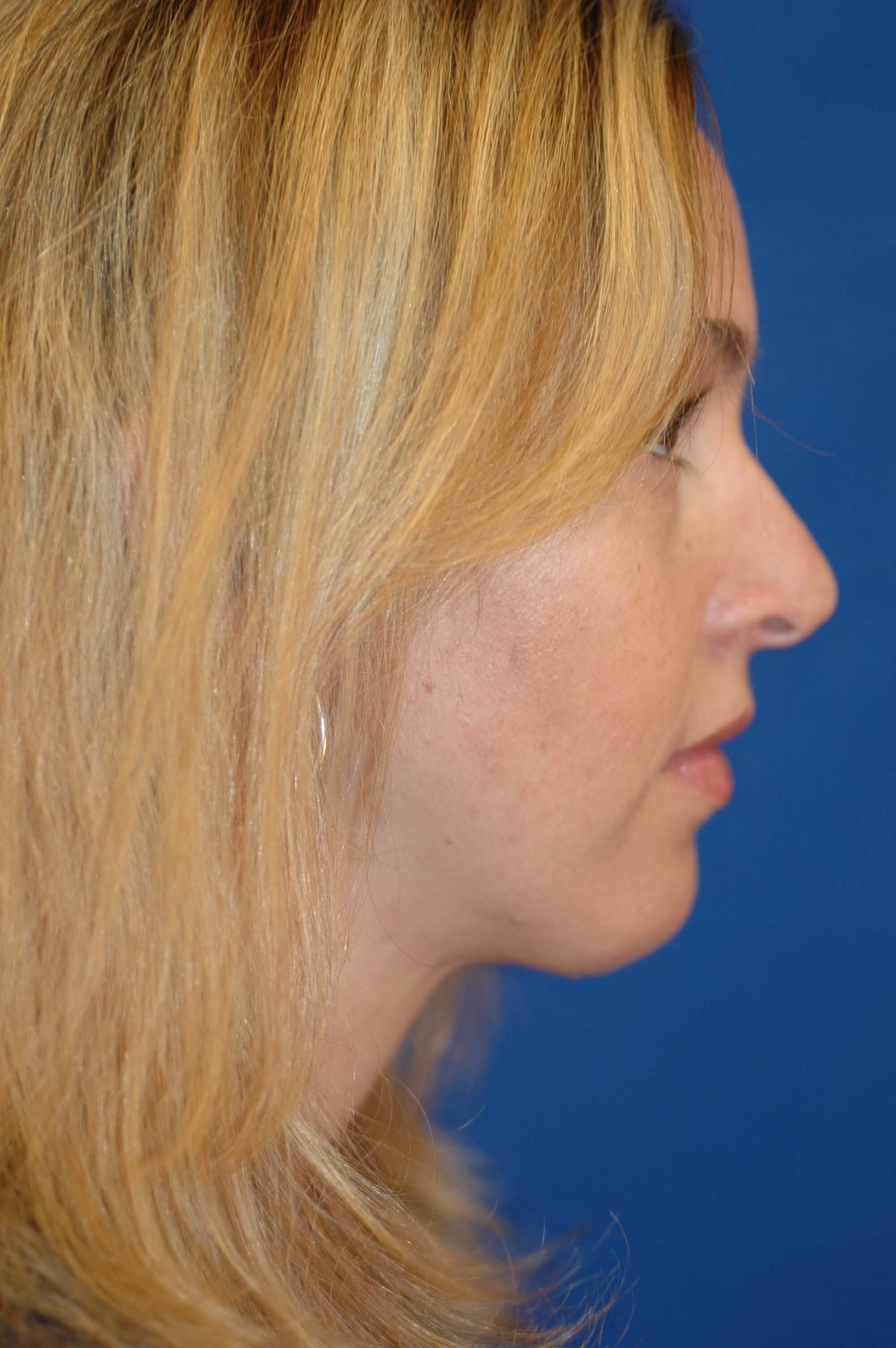 Newport Beach Chin Implant Side View After