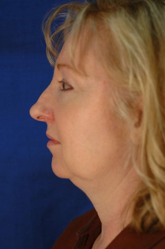 Newport Facial Rejuvenation Side View Beforse
