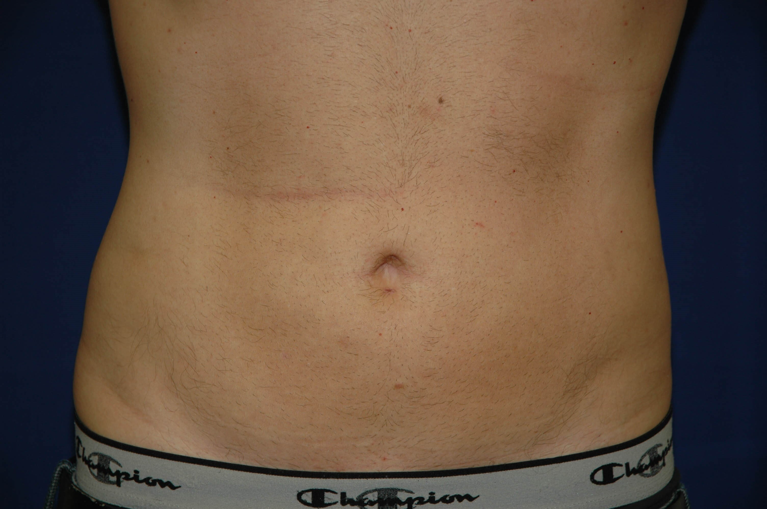 Newport Beach Liposuction After Front View