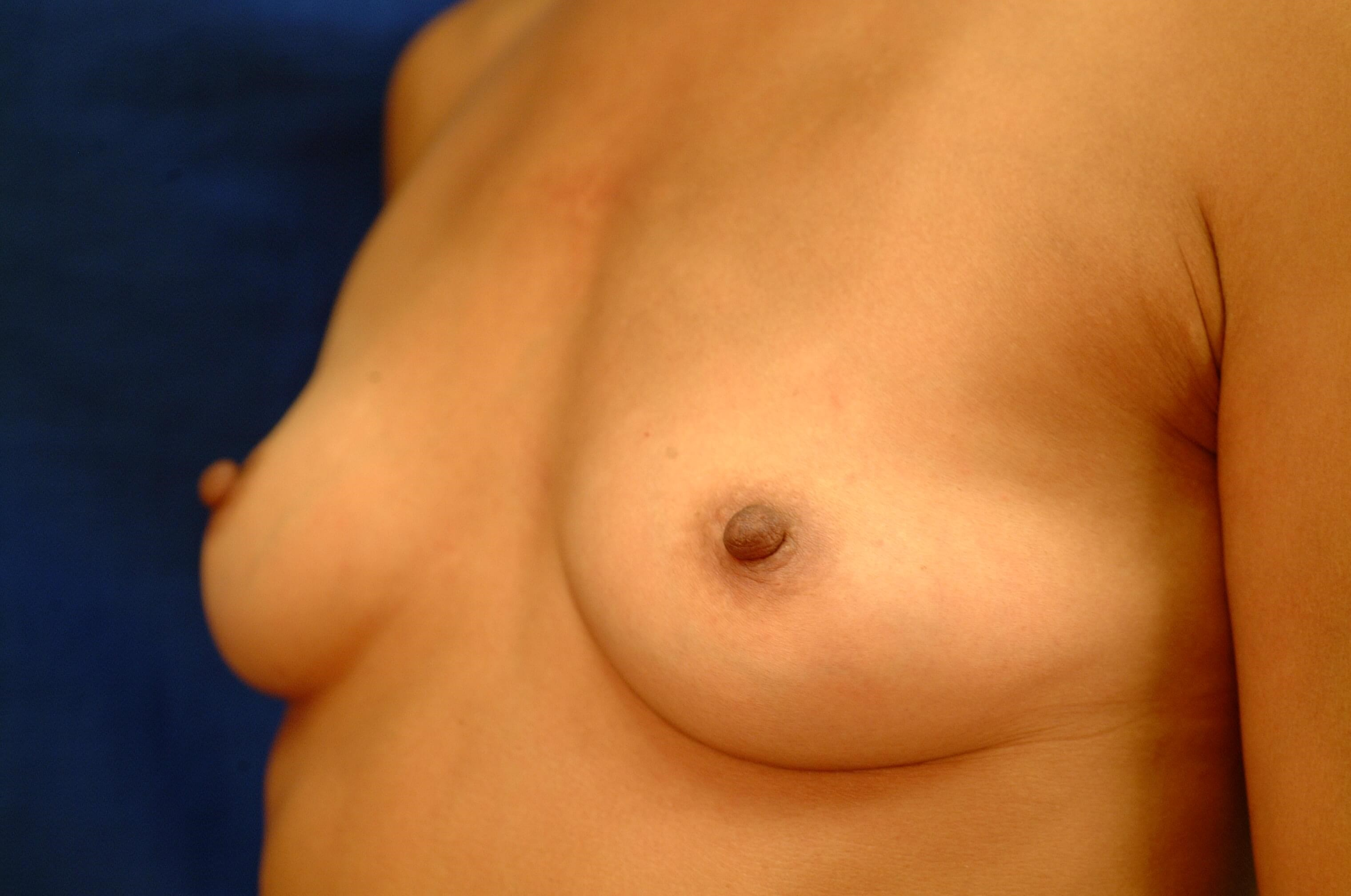 Newport Beach Breast Aug Oblique View Before