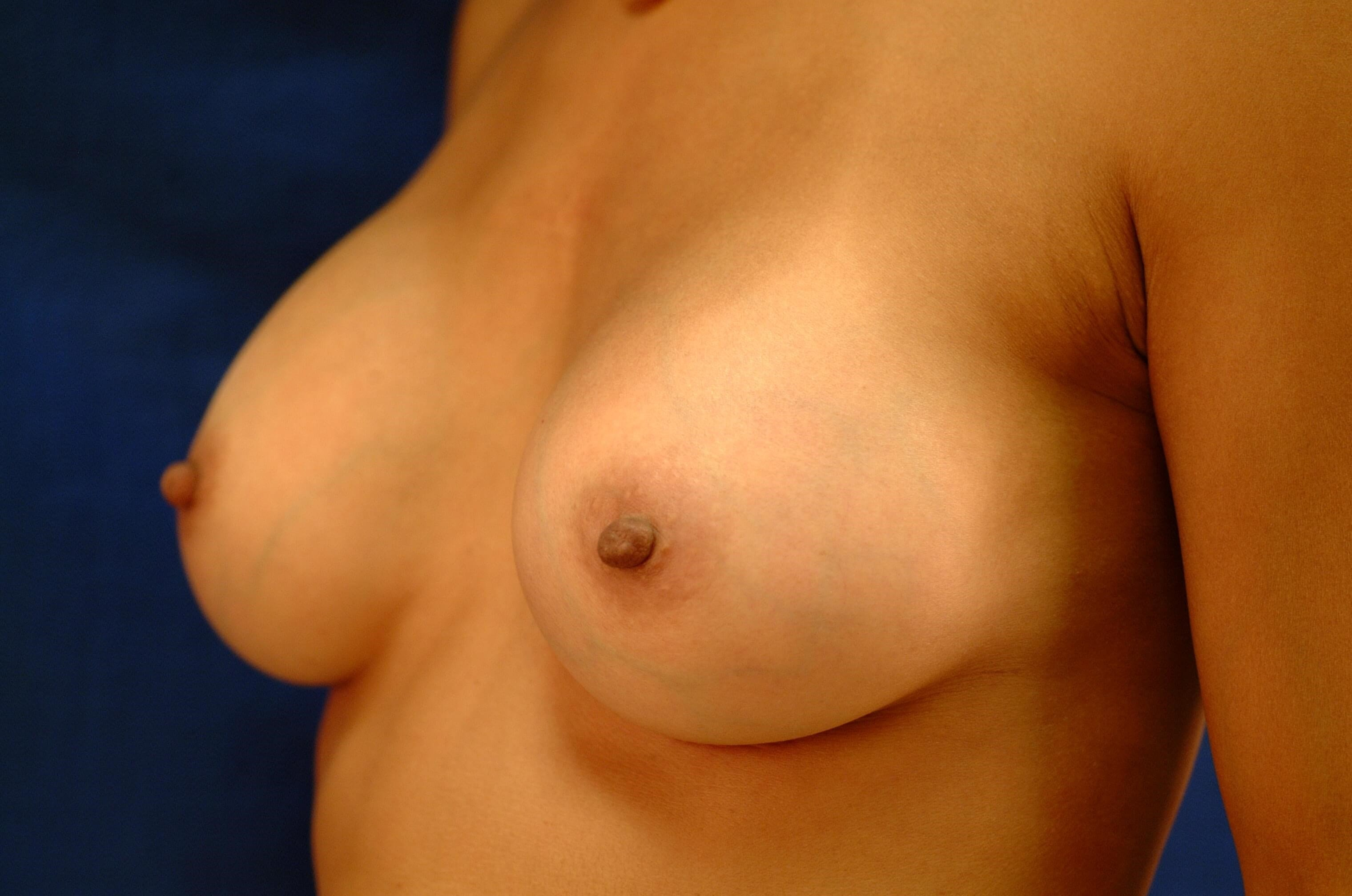 Newport Beach Breast Aug Oblique View After