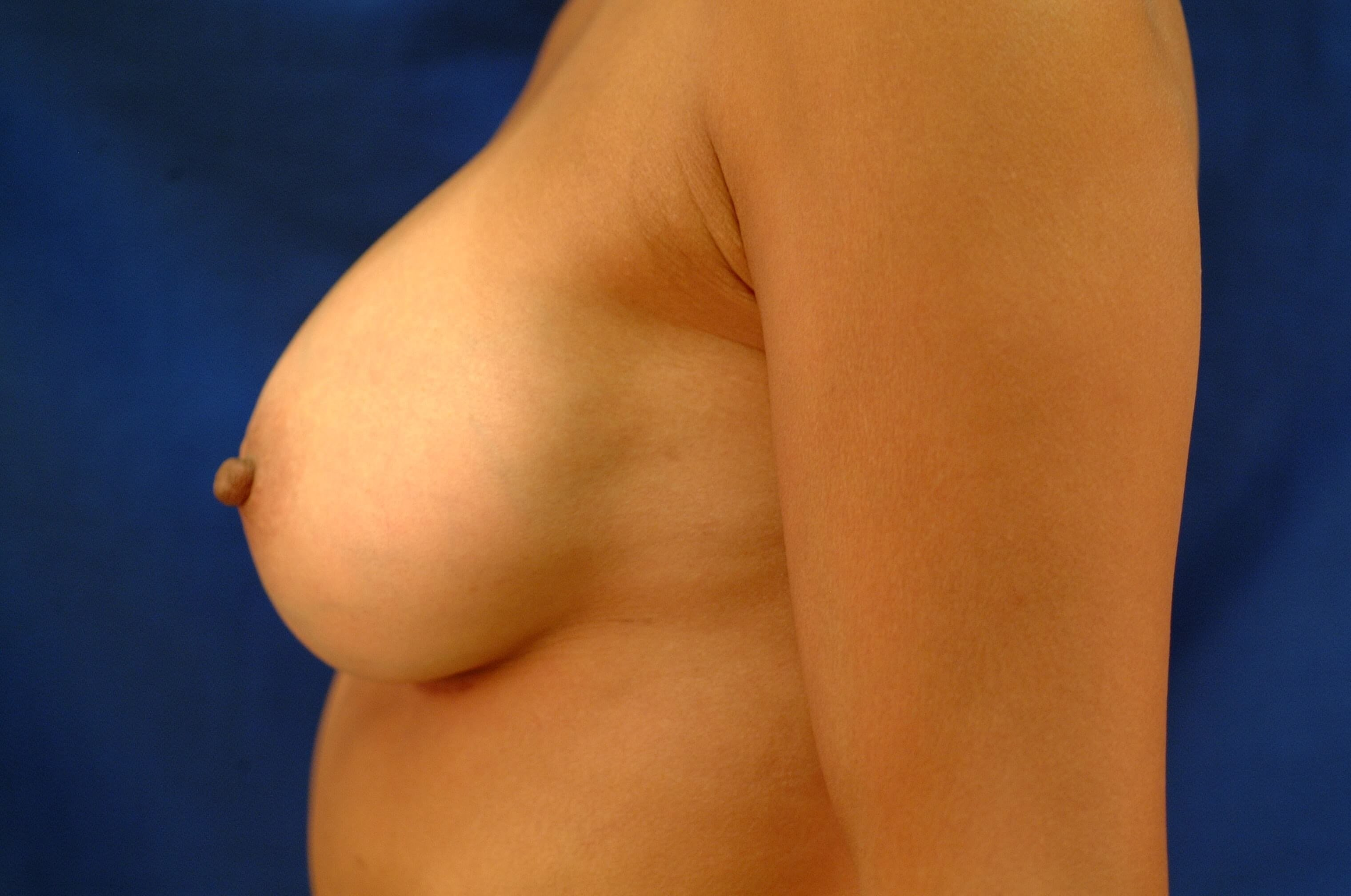 Newport Beach Breast Aug Side View After