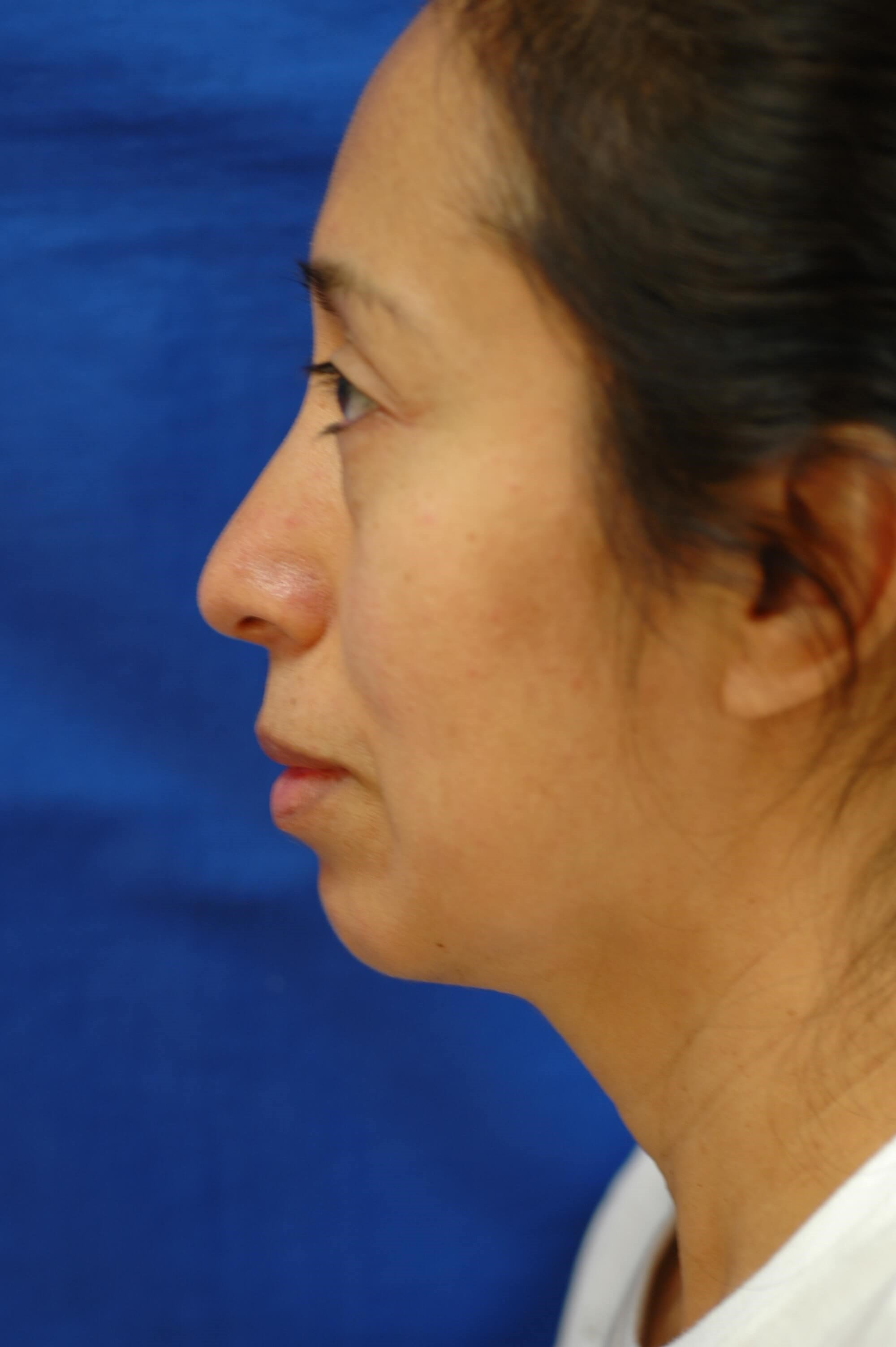 Newport Facial Rejuvenation Side View Before