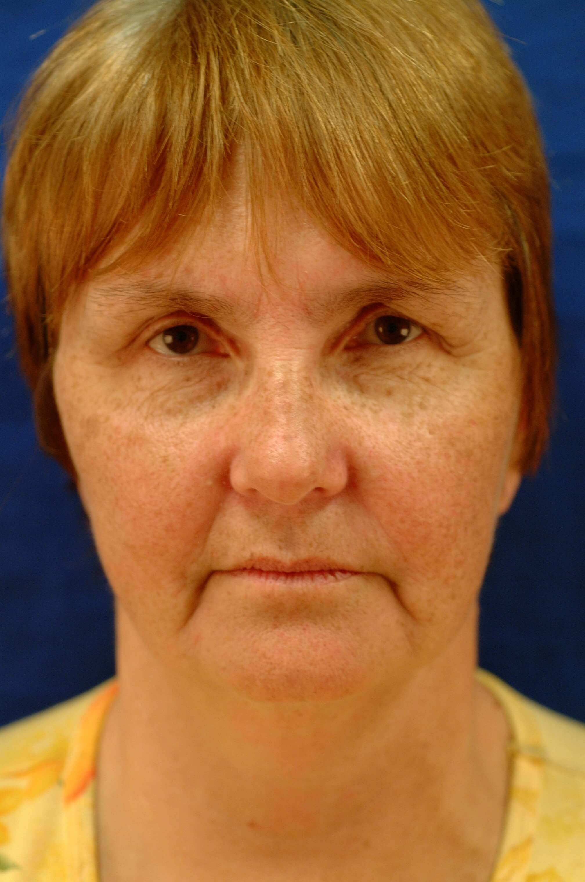 Newport Facial Rejuvenation Front View Before