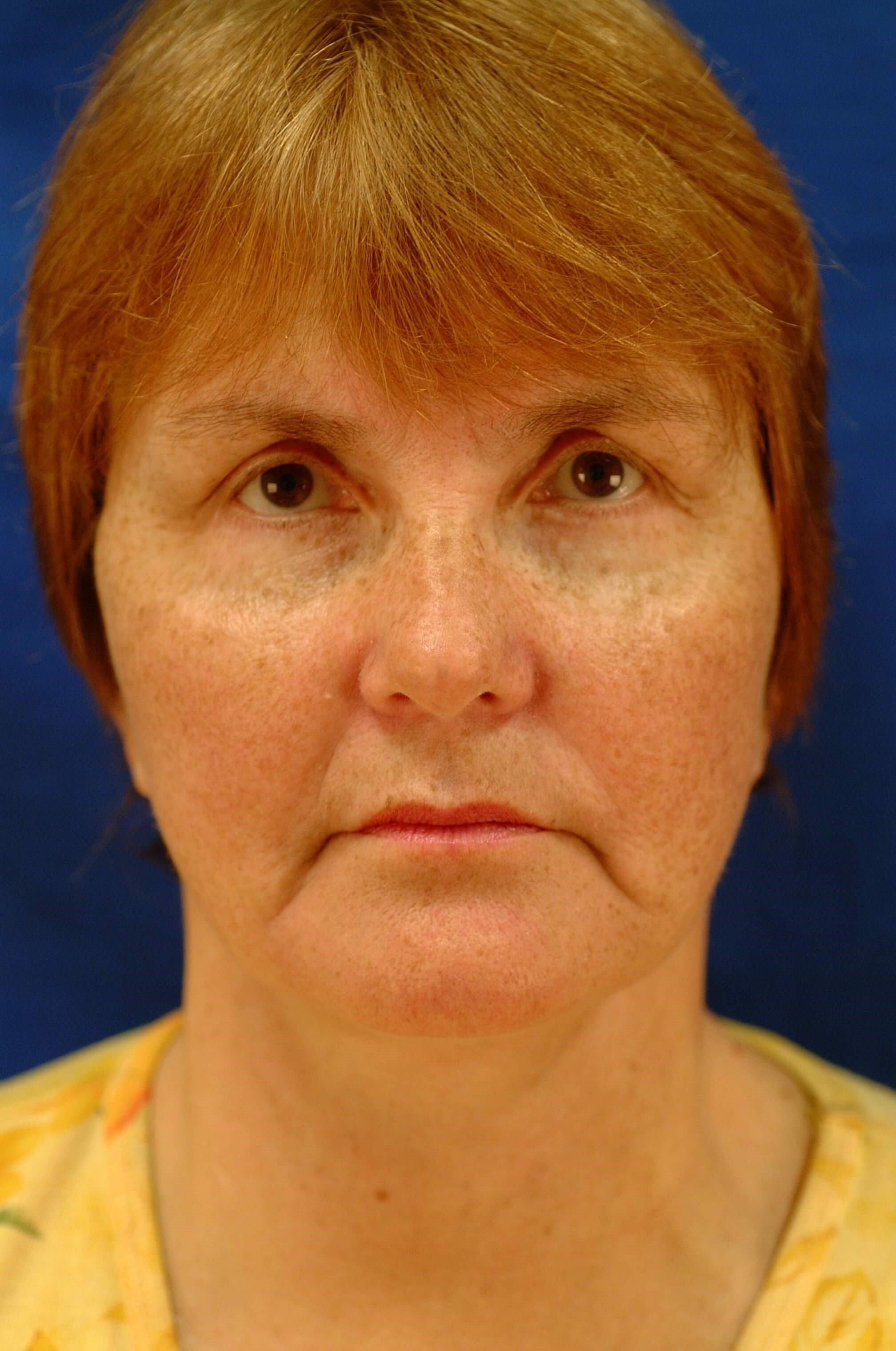 Newport Facial Rejuvenation Front View After