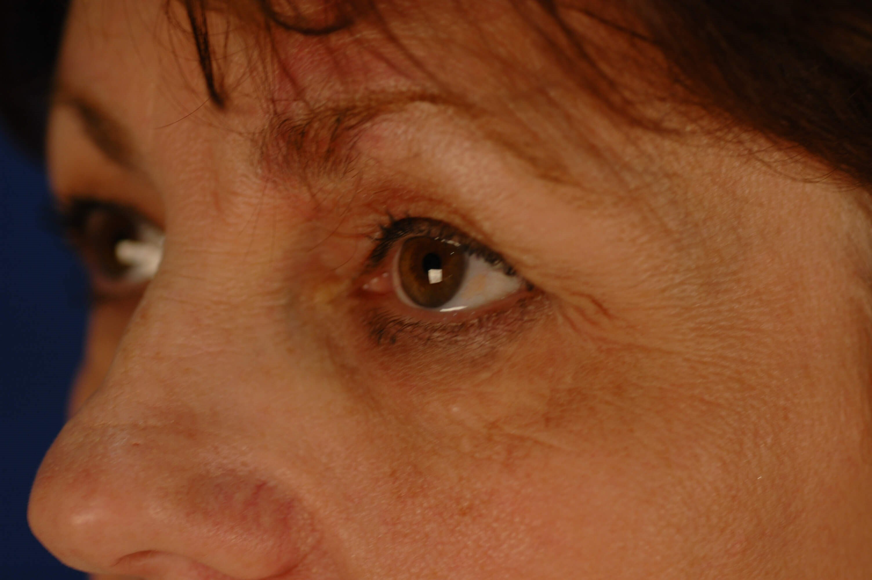 Newport Beach Blepharoplasty Oblique View Before