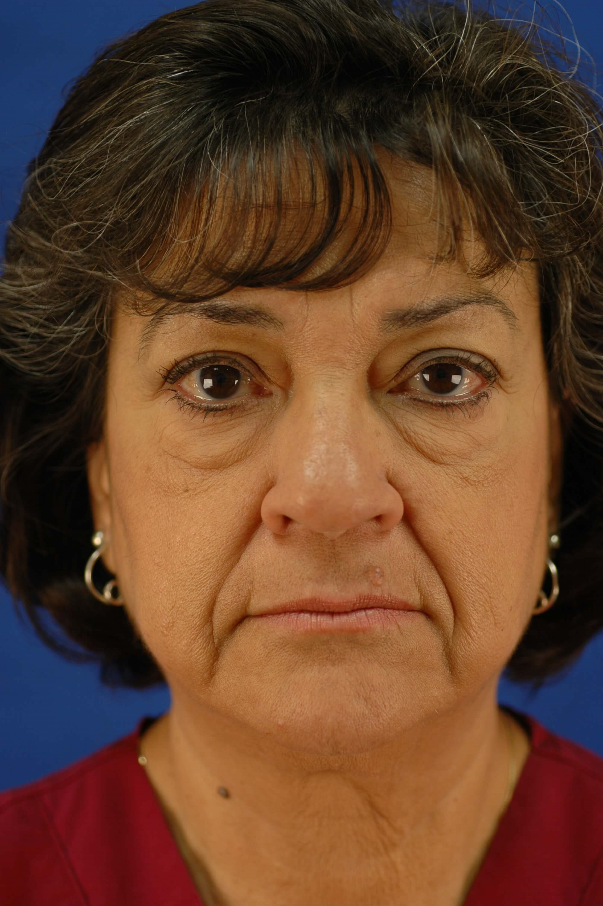 Newport Beach Blepharoplasty Side View Before