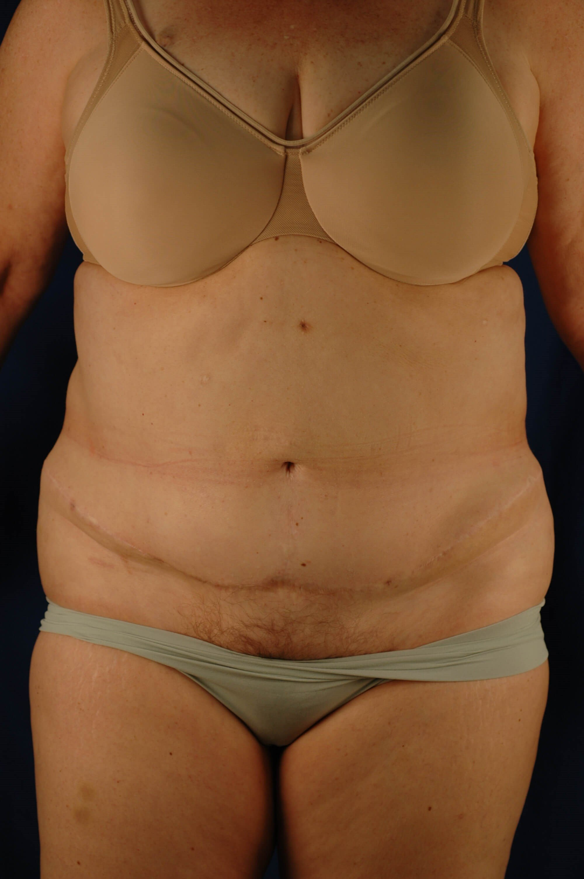 Newport Beach Body Contouring Front View After