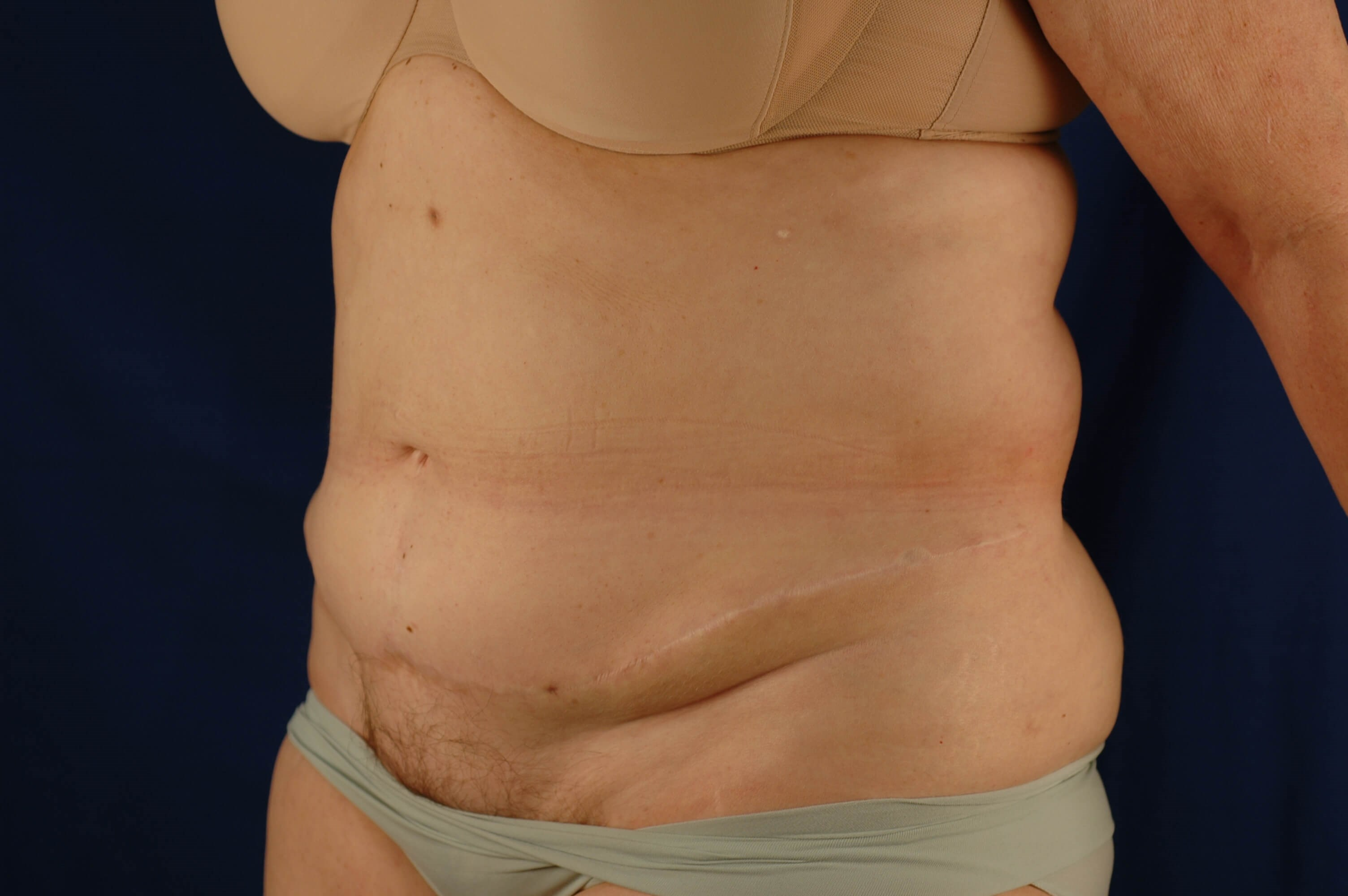 Newport Beach Body Contouring Oblique View After