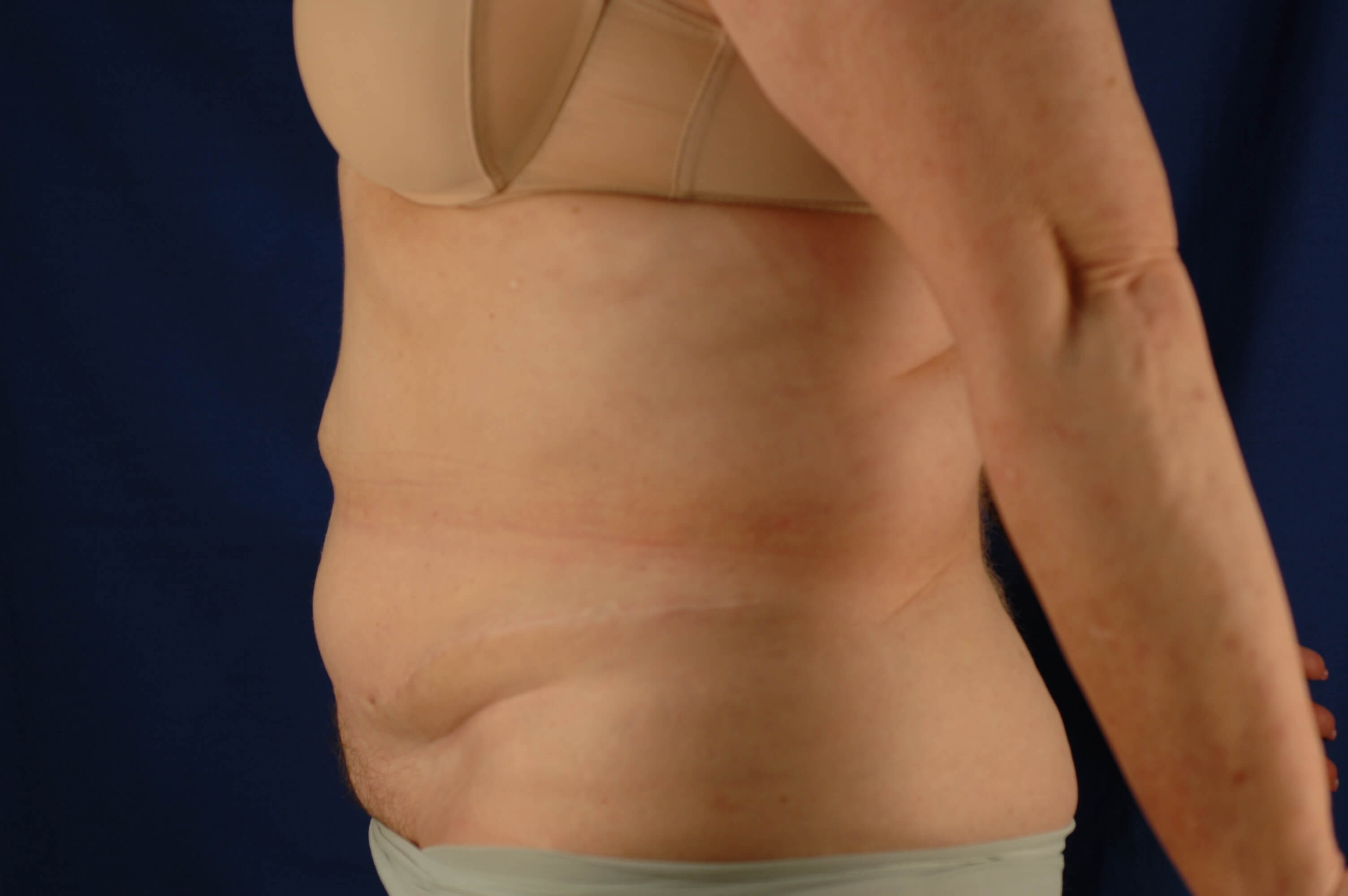 Newport Beach Body Contouring Side View After
