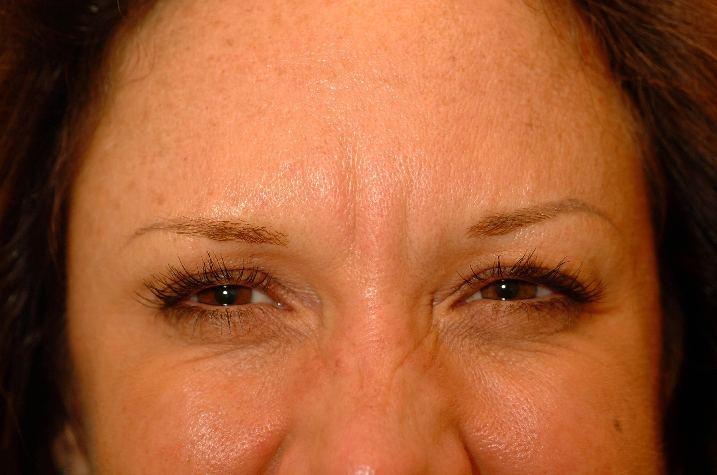 Newport Beach Filler/Botox Before Front View
