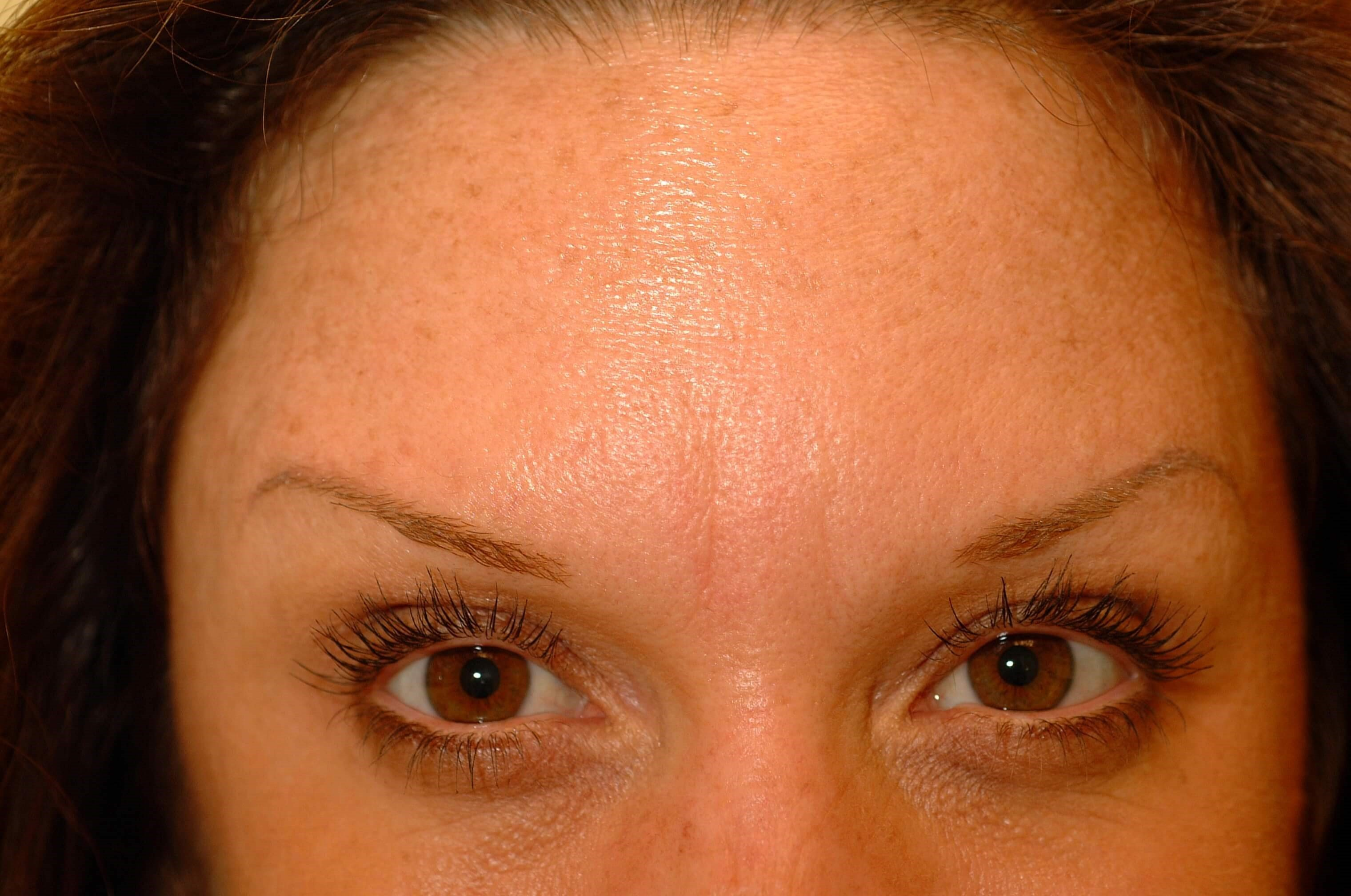 Newport Beach Filler/Botox After Front View
