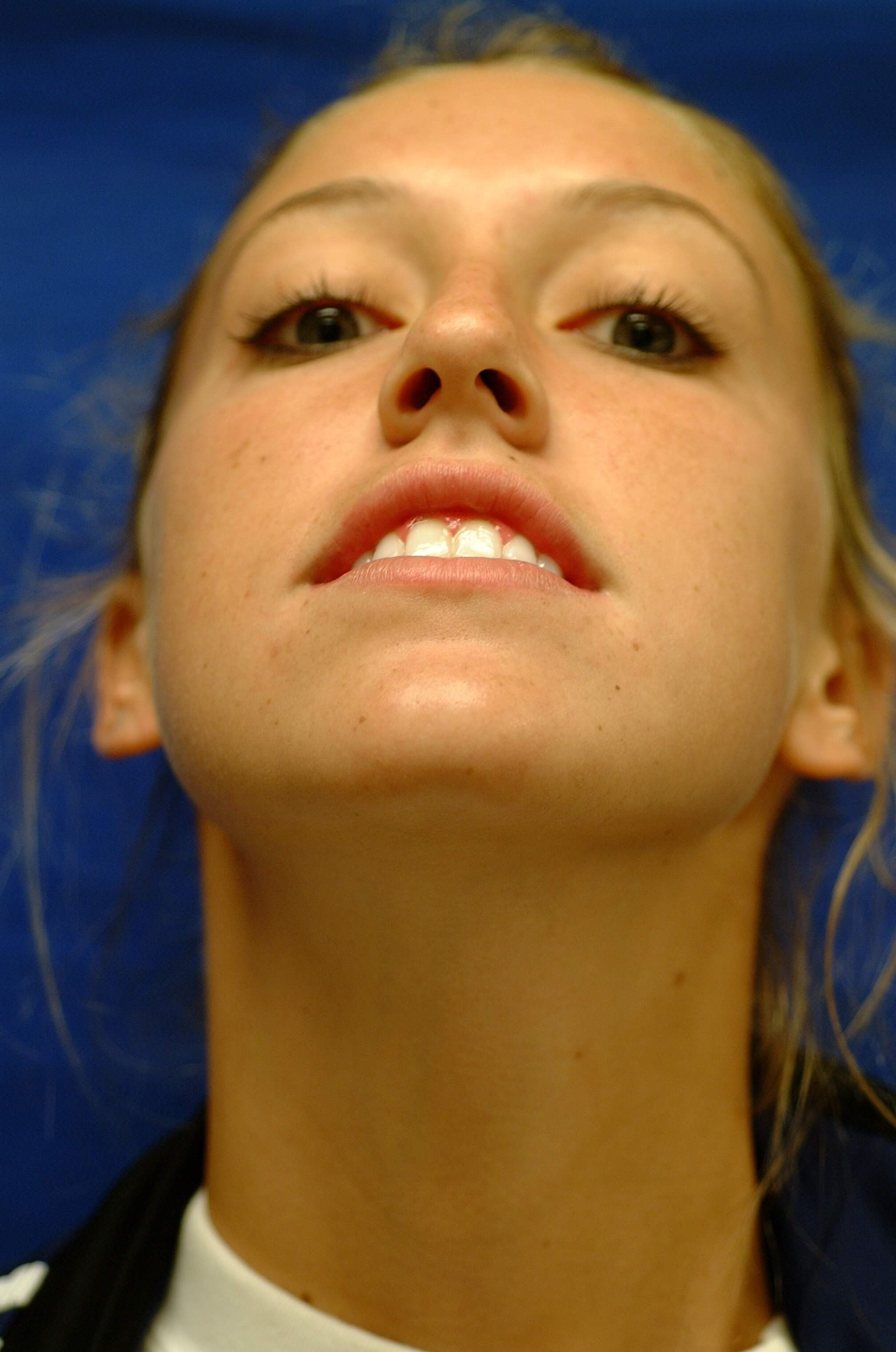 Newport Beach Rhinoplasty Worm's Eye View Before