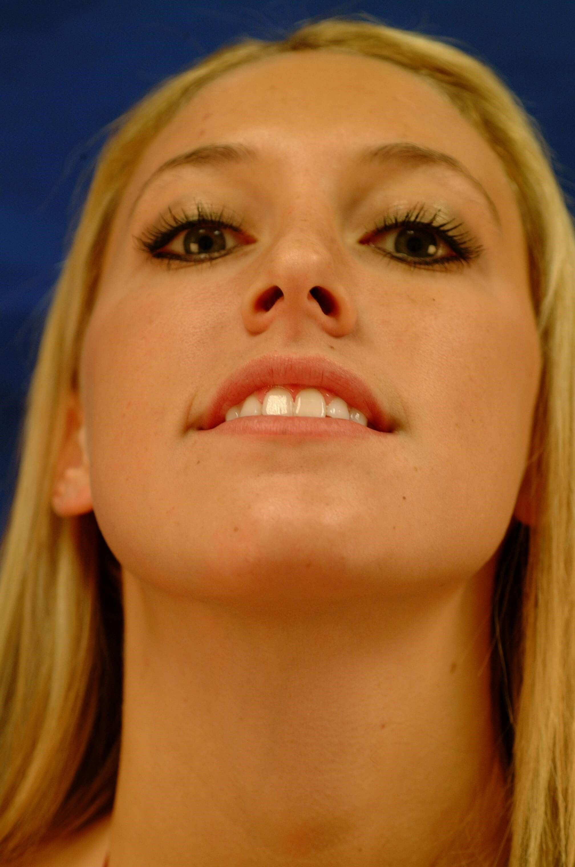 Newport Beach Rhinoplasty Worm's Eye View After