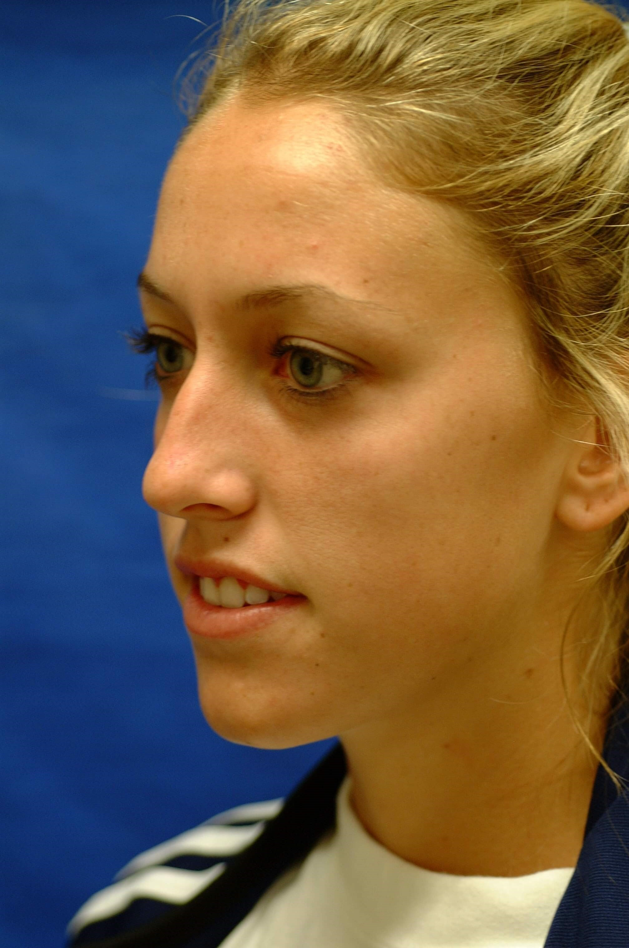 Newport Beach Rhinoplasty Oblique View Before