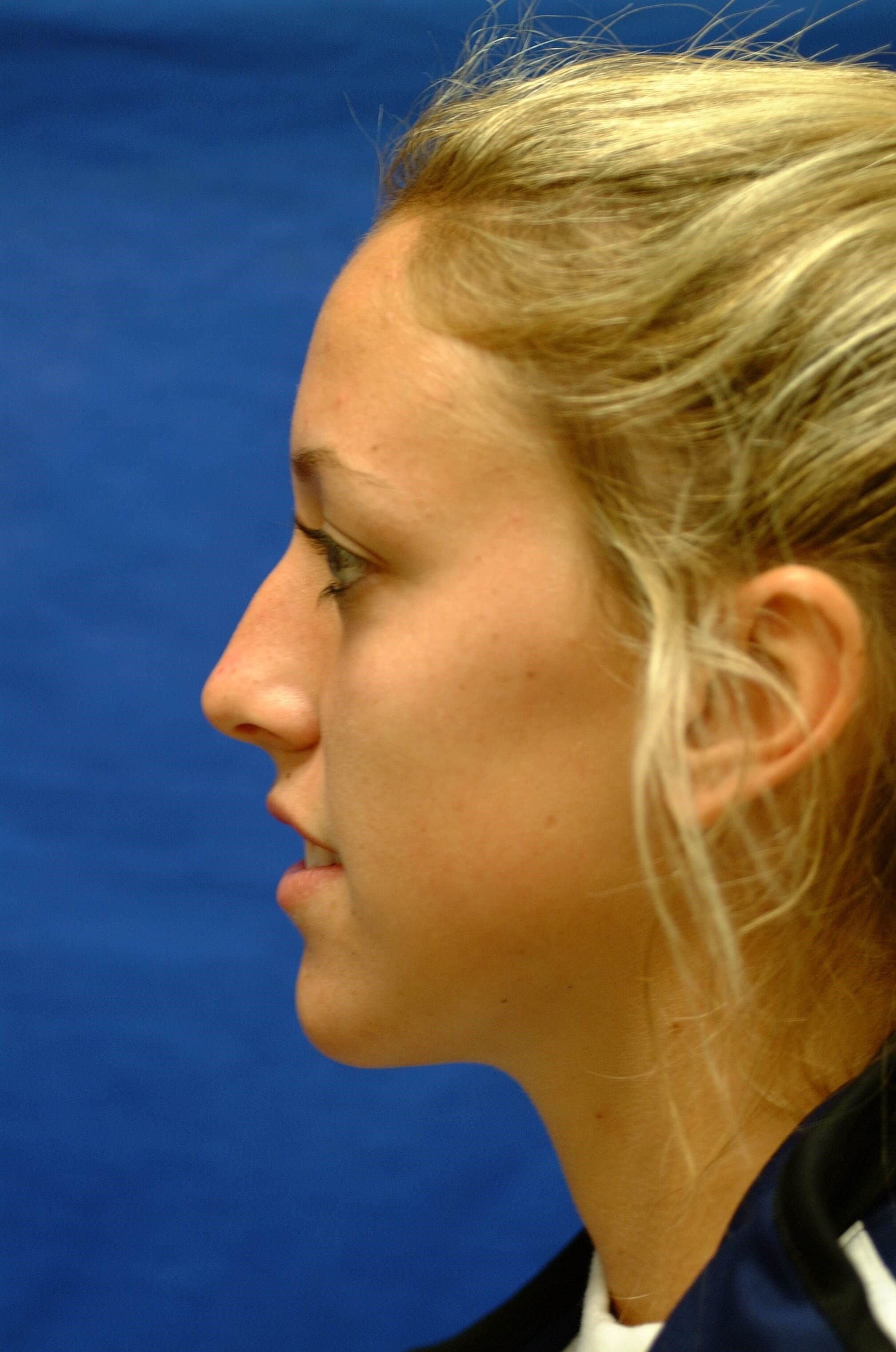 Newport Beach Rhinoplasty Side View Before